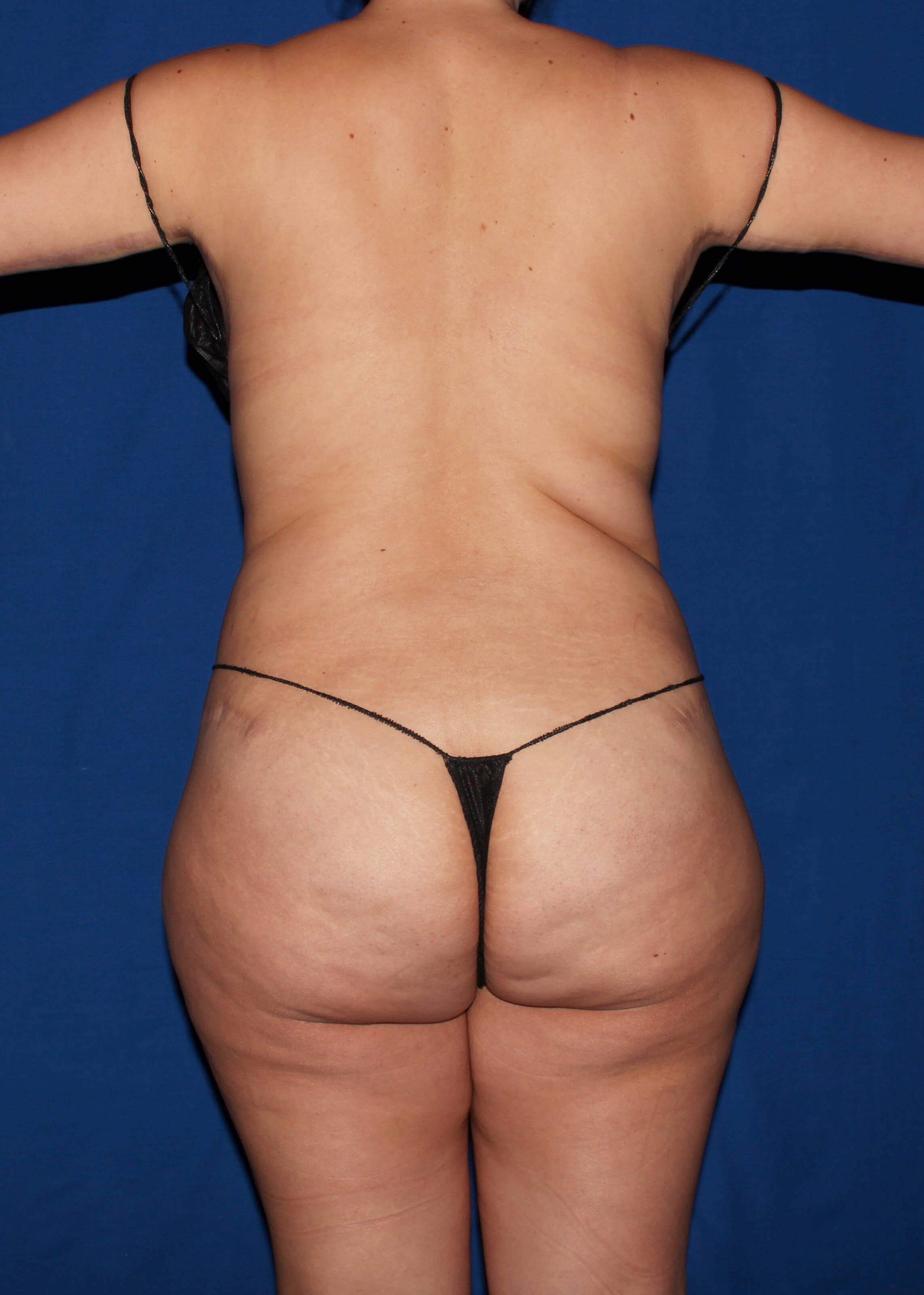 Before Liposuction - Back View
