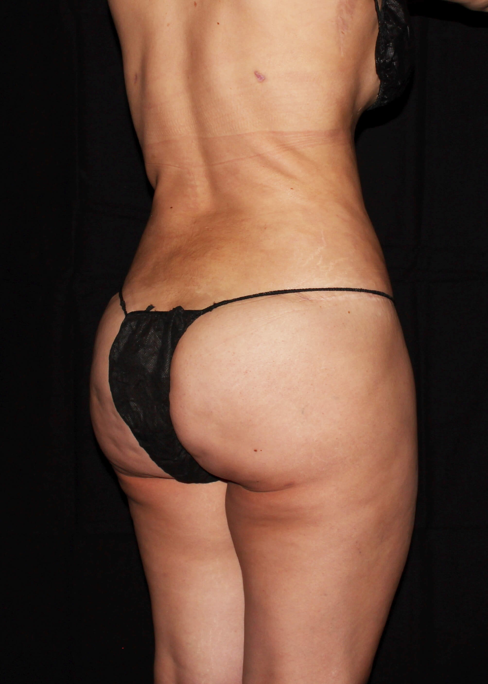 Full Torso Liposuction After - Right Back View
