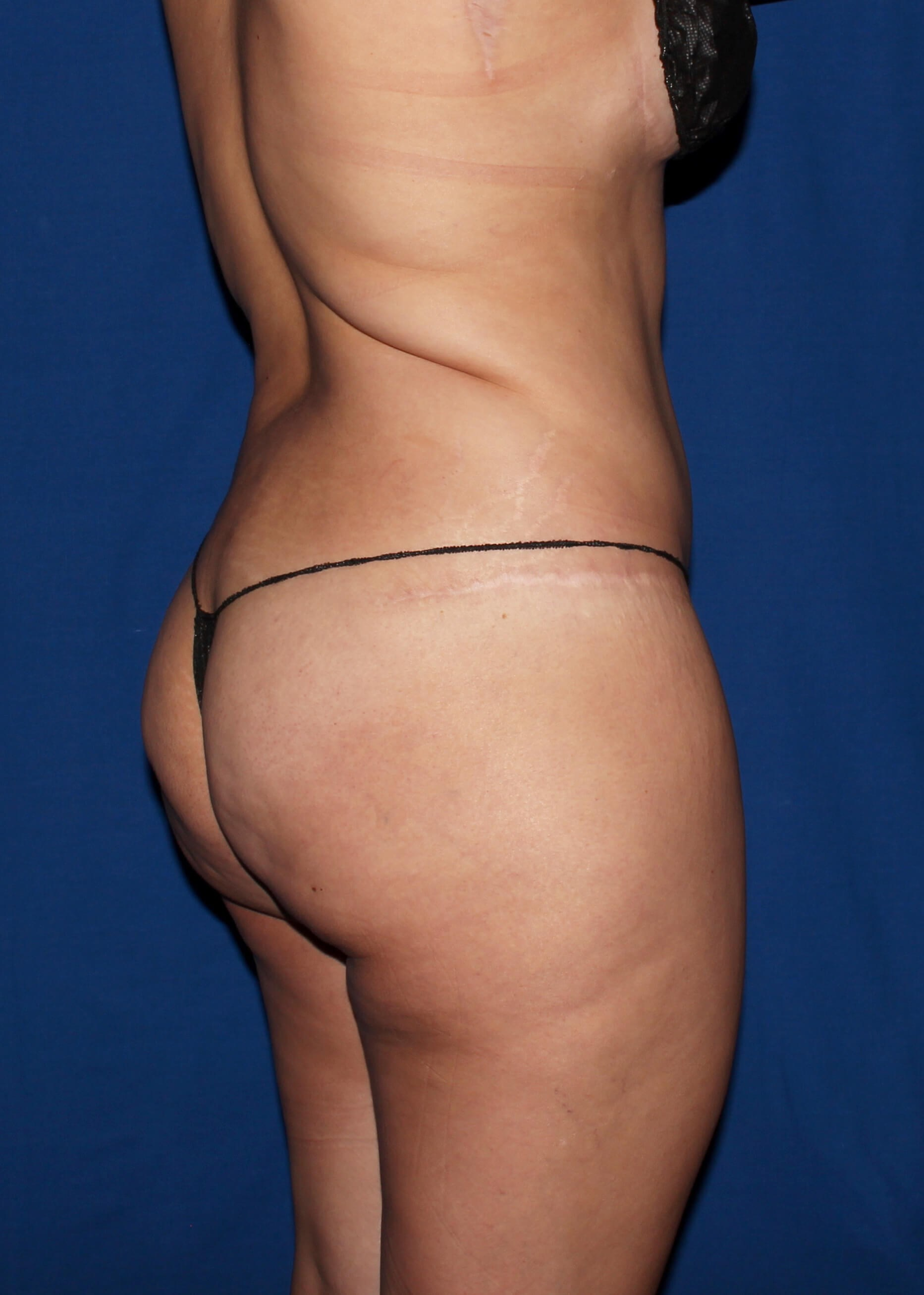 Full Torso Liposuction Before - Right Back View