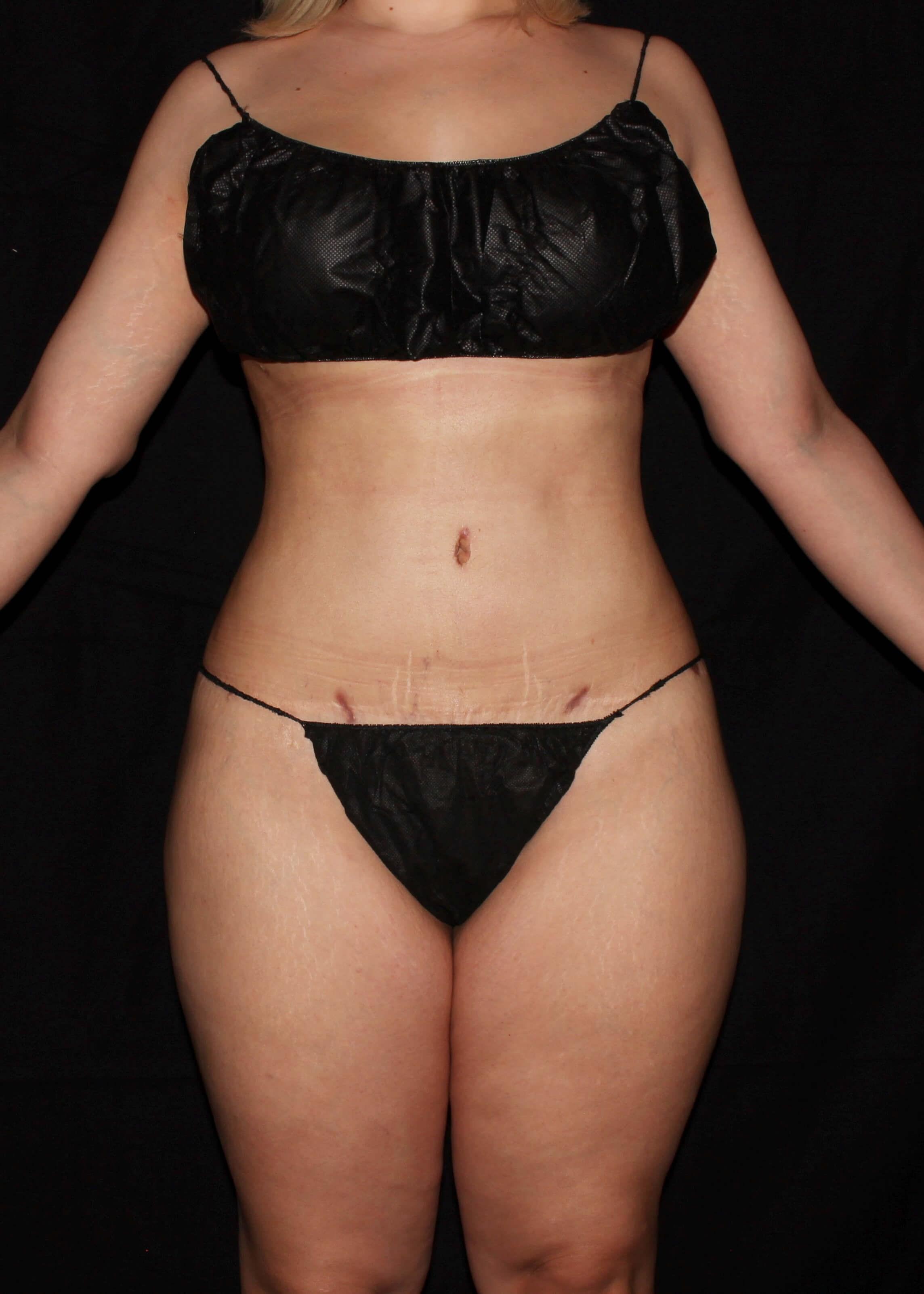 Full Torso Liposuction After - Full Torso Liposuction