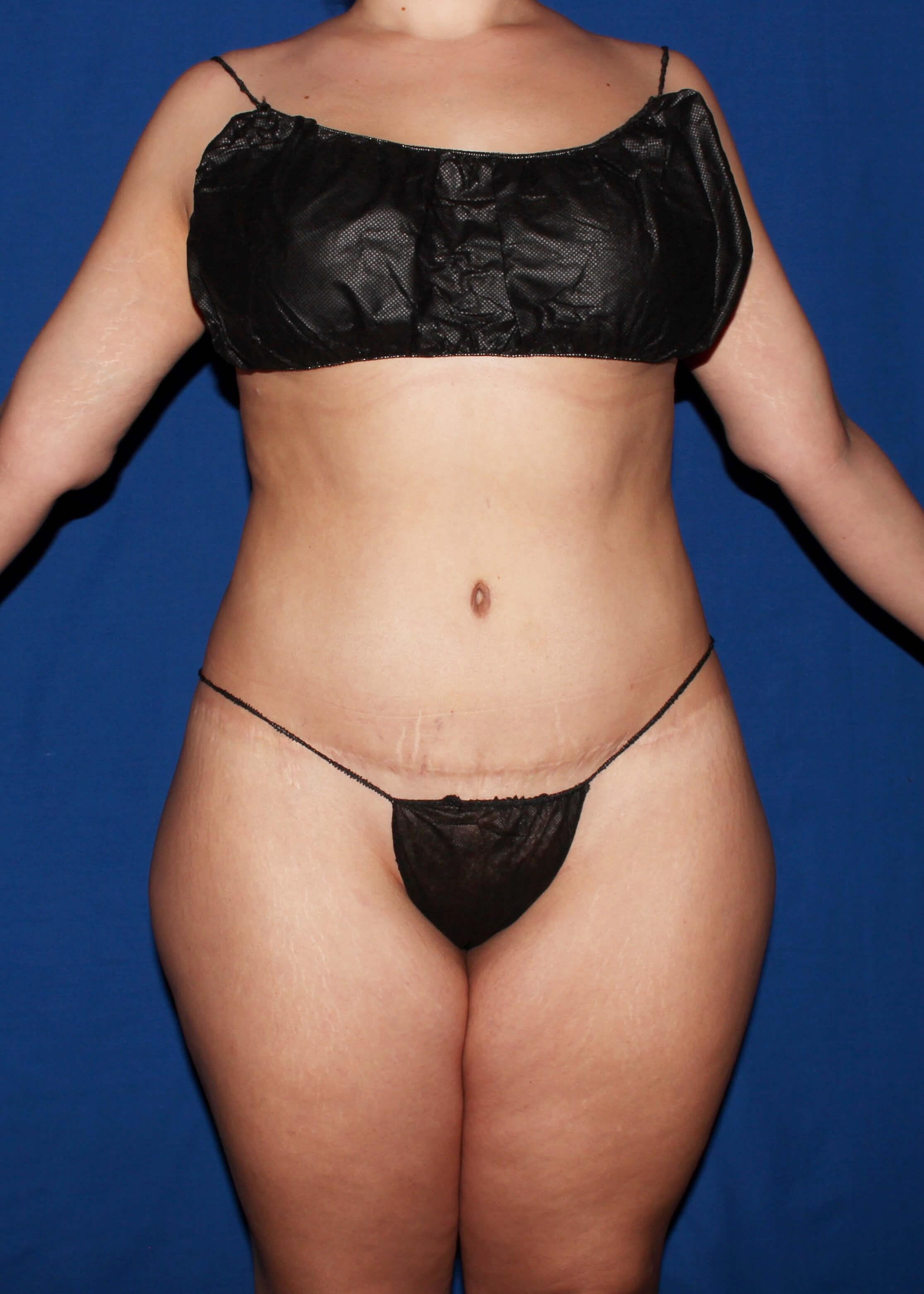 Full Torso Liposuction Before - Full Torso Liposuction