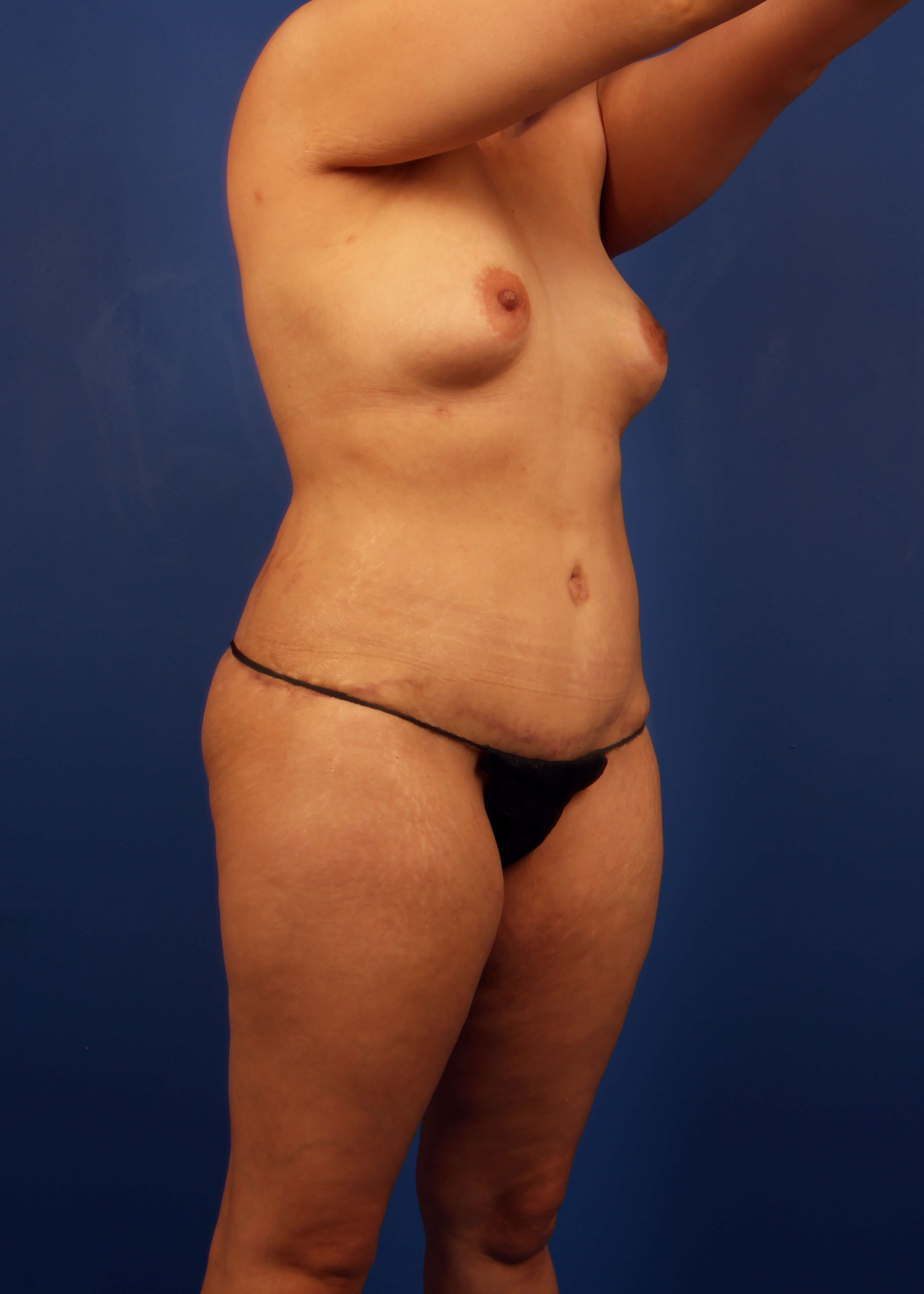 Tummy Tuck AFter - Right Oblique View