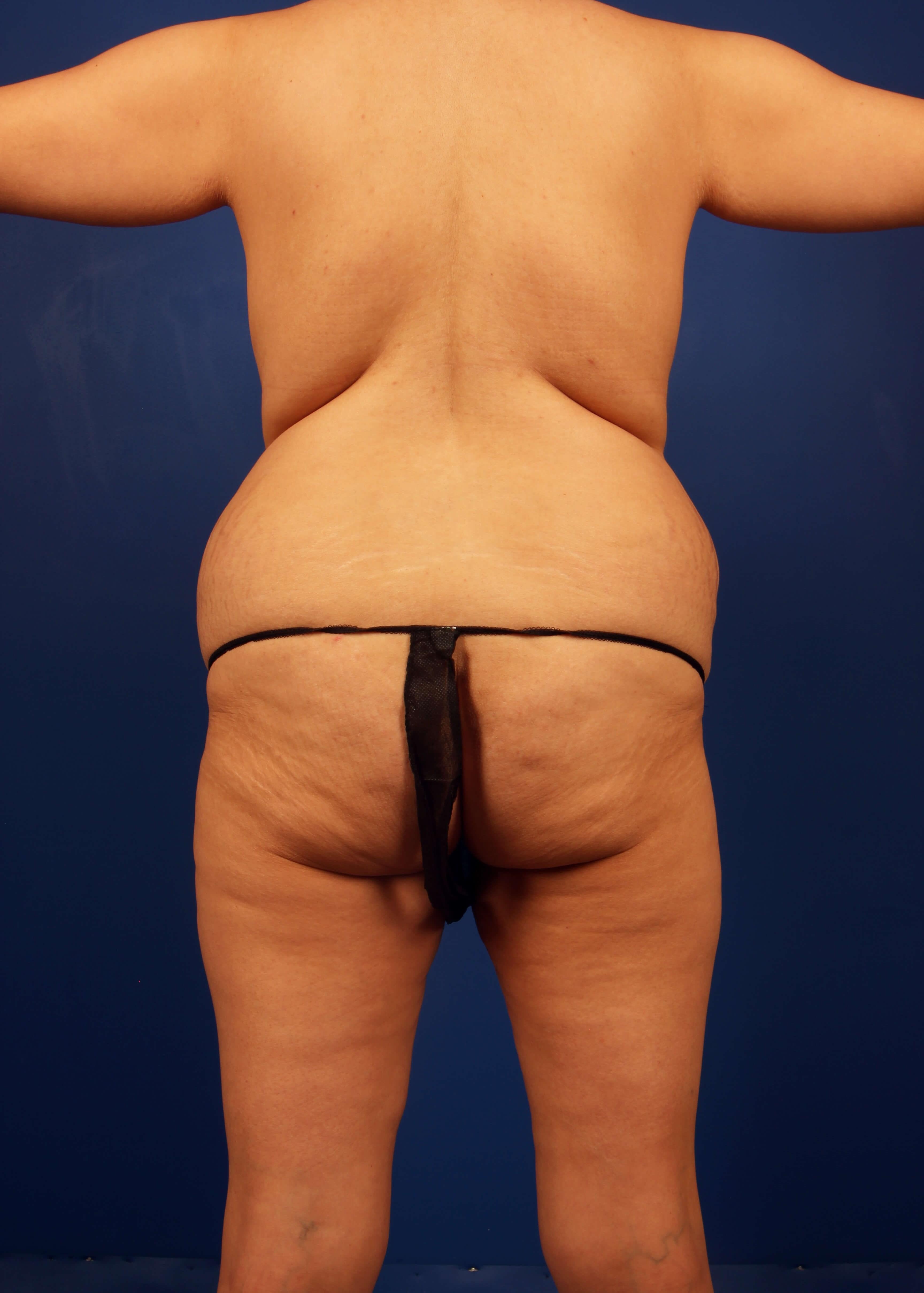 Tummy Tuck Before - Back