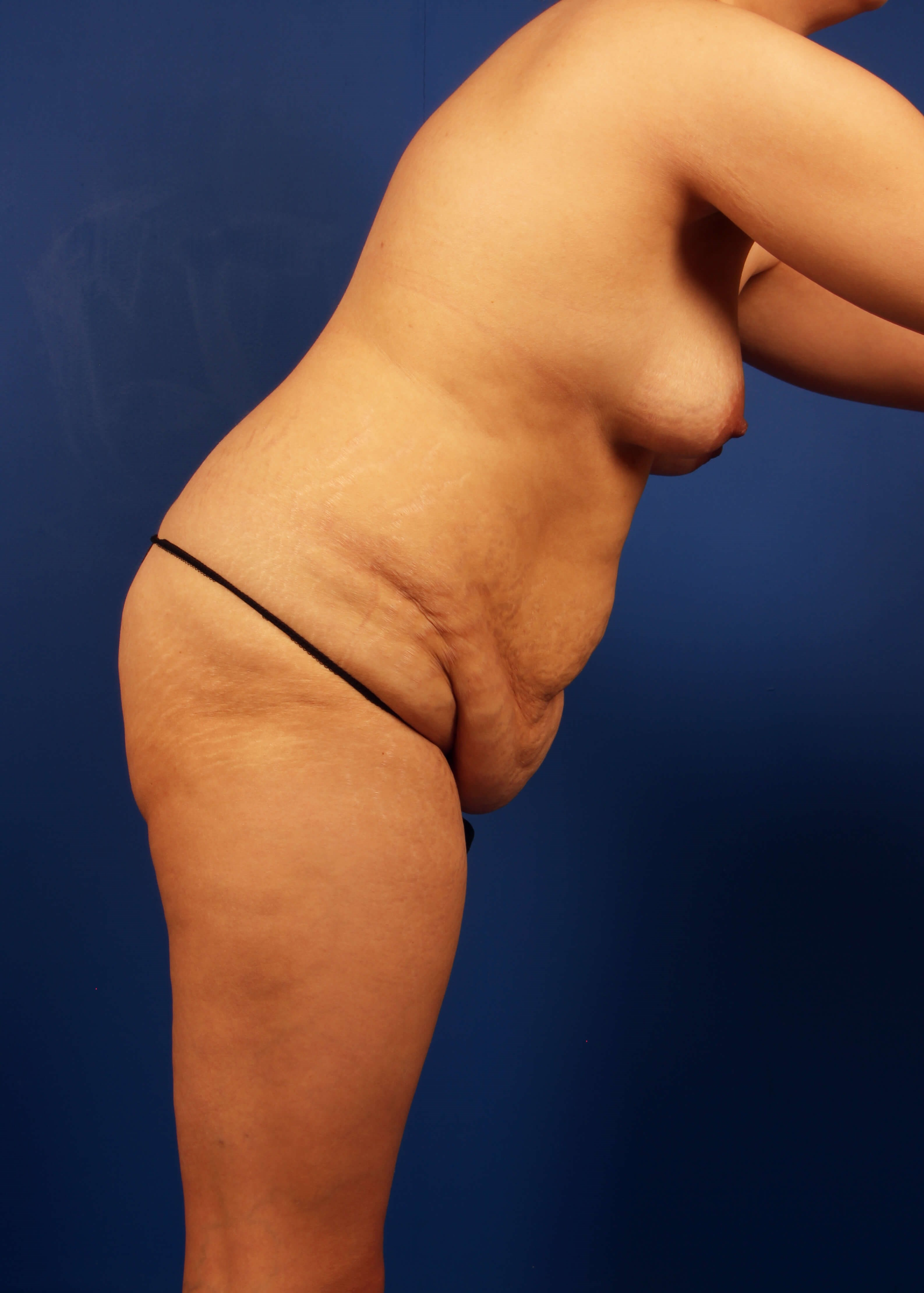 Tummy Tuck Before - Right View