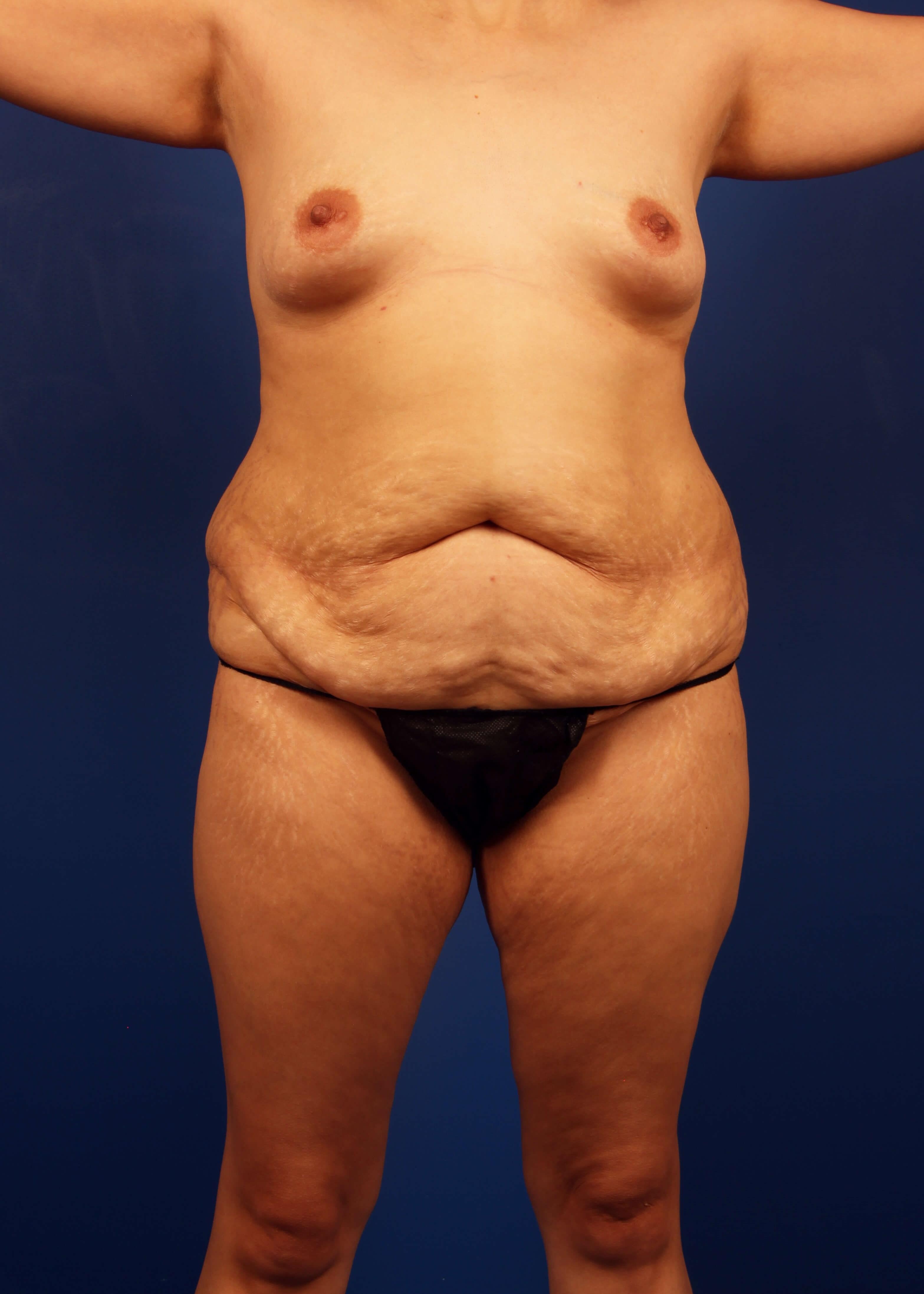 Tummy Tuck Before - TT