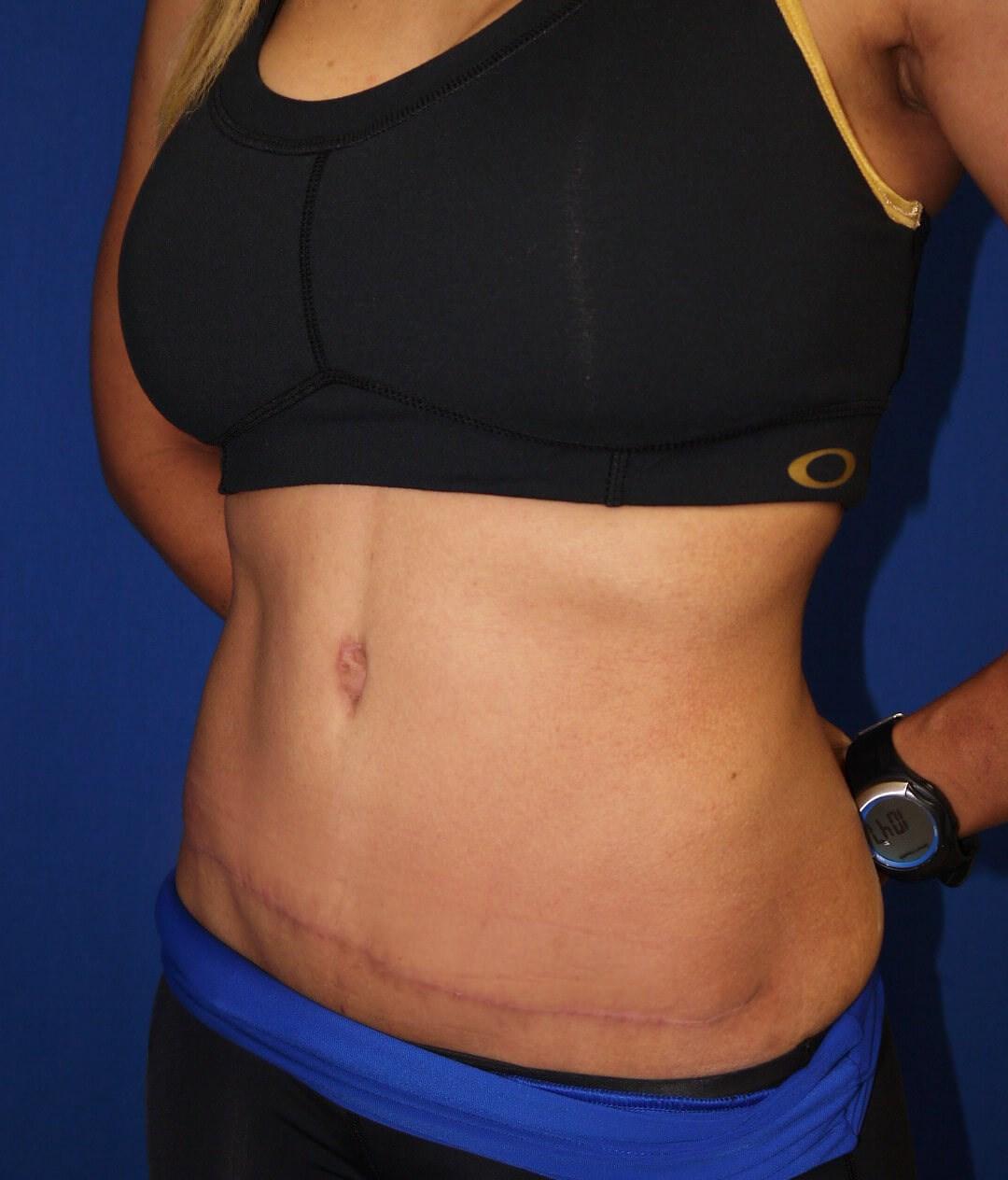 tummy tuck after - Left Oblique View - Left Oblique View