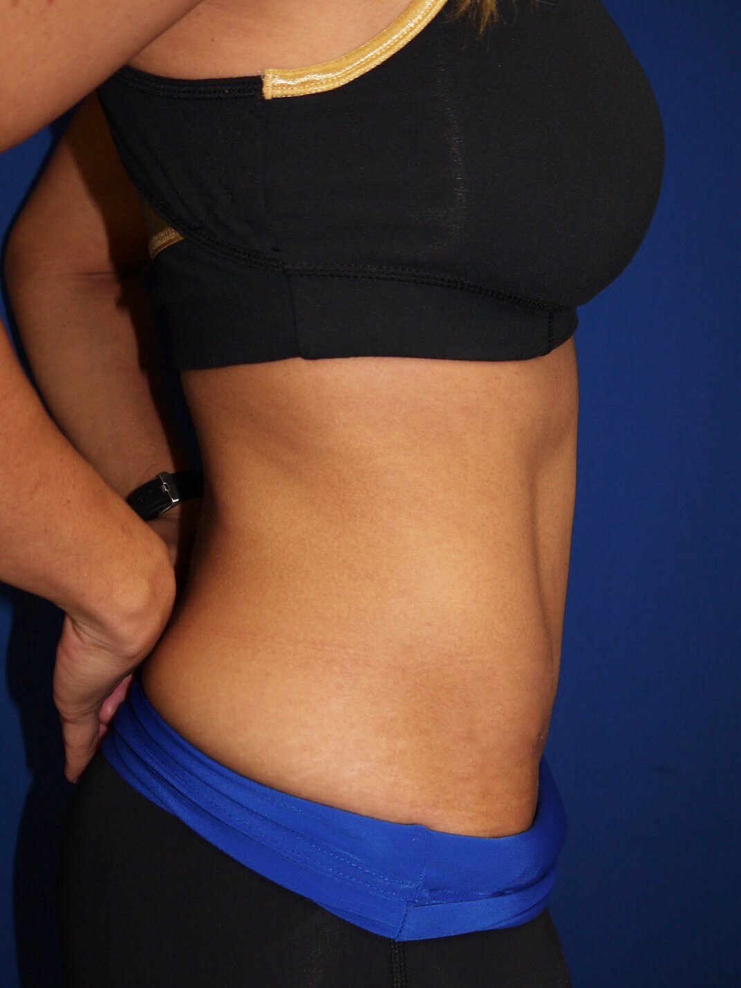 tummy tuck after - Right View - Right View