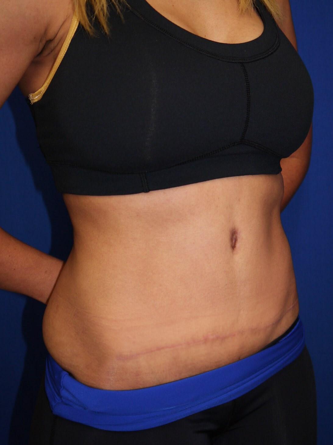 tummy tuck after - Right Oblique View - Right Oblique View