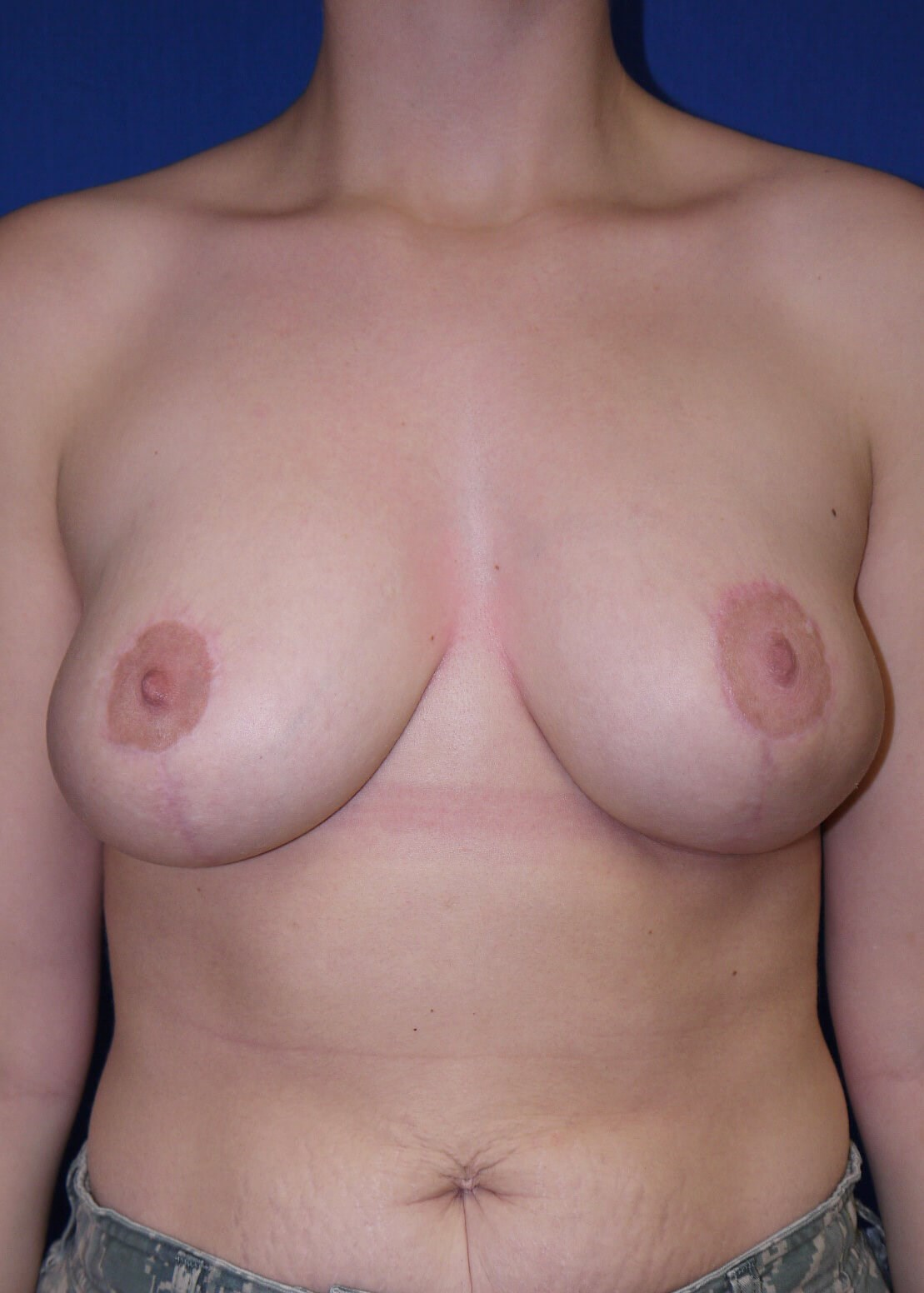 Breast Reduction After - Dr Mata