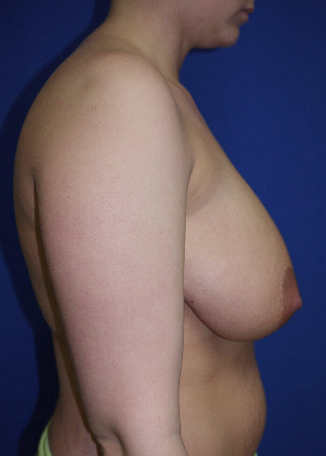 Breast Reduction Before - Right View