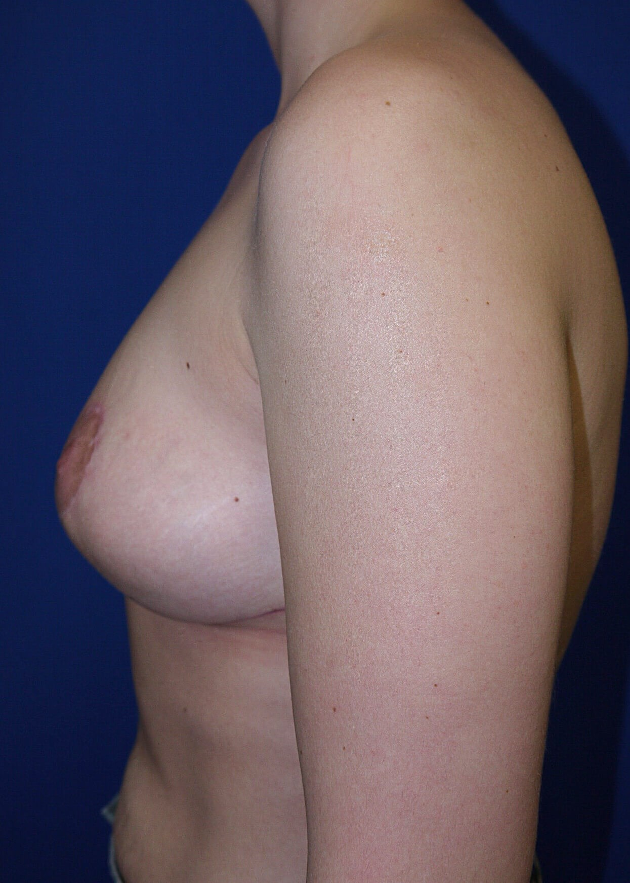 Breast Reduction After - Left View