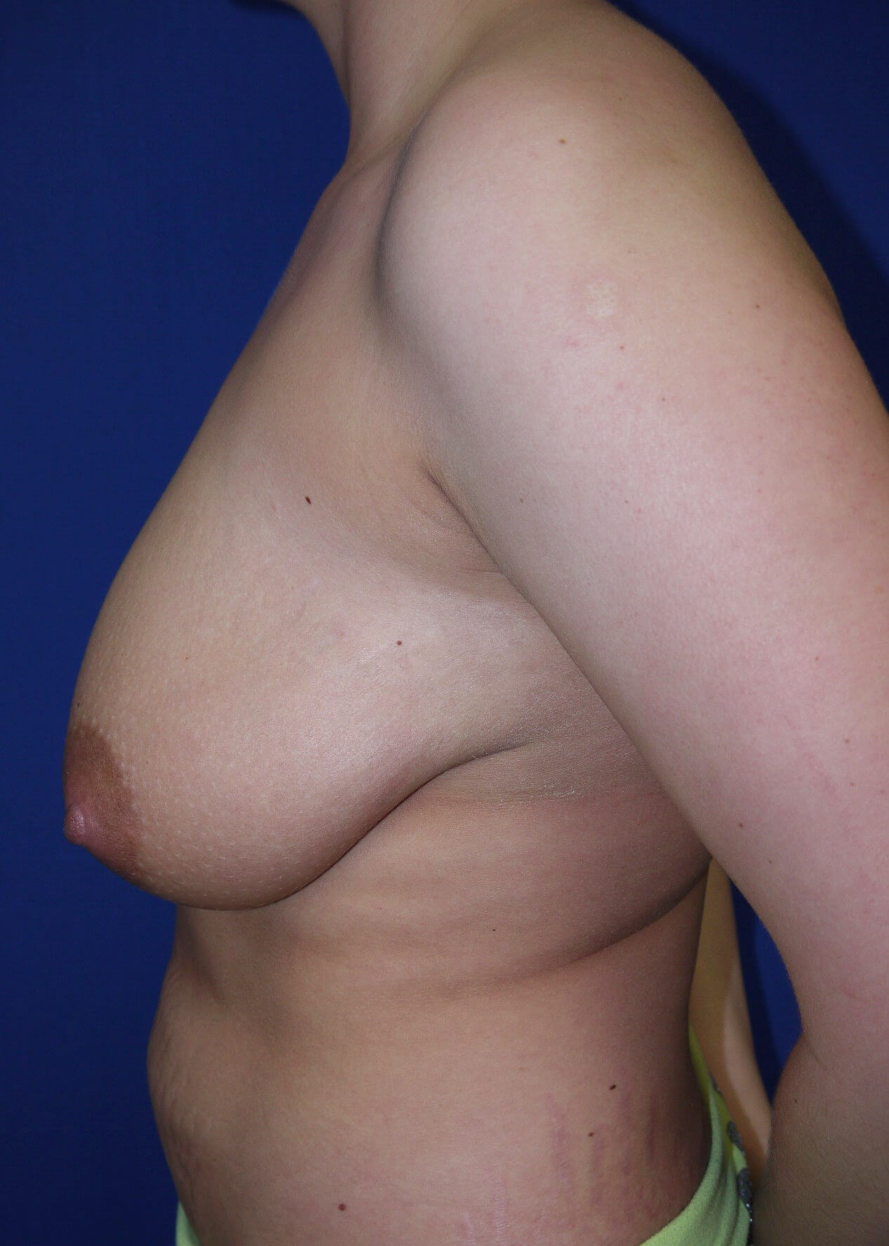 Breast Reduction Before - Left View