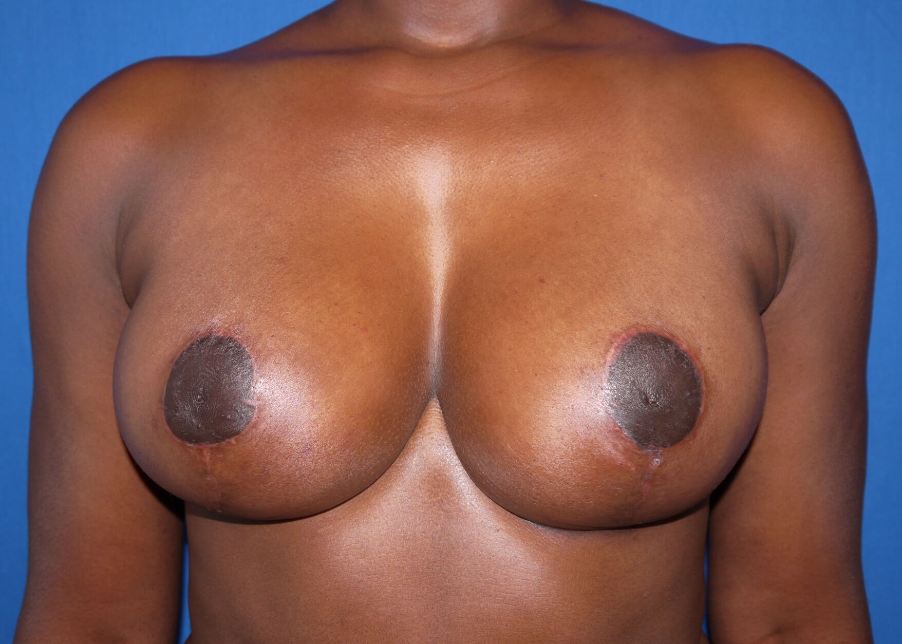 Breast Augmentation After - Dr Mata