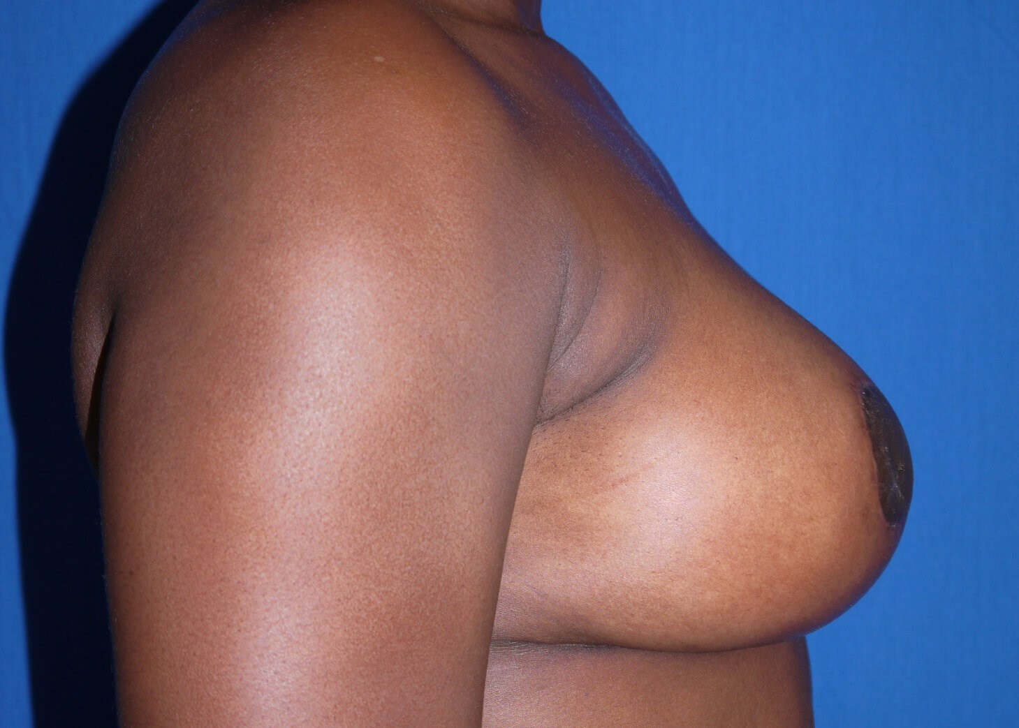 After Breast Augmentation with Lift - Right View