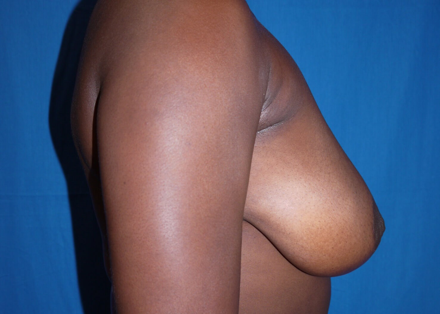 Before Breast Augmentation with Lift - Right View
