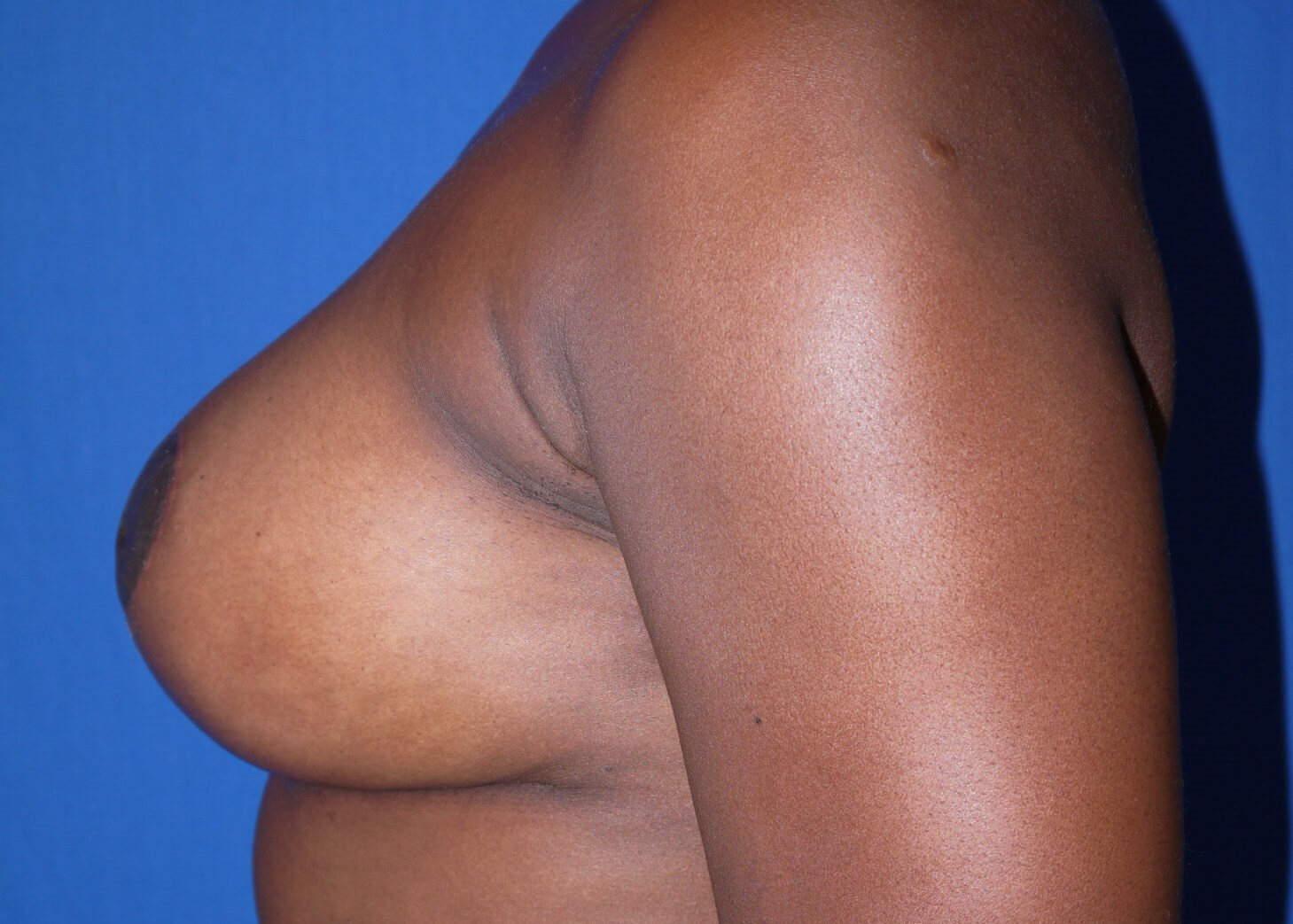 Breast Augmentation AFter - Left View