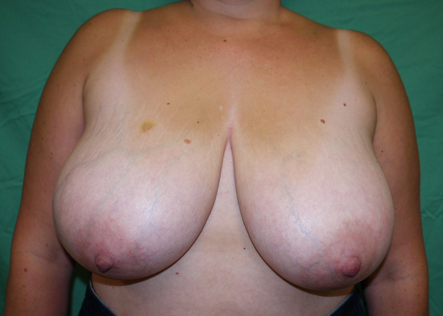 Breast Reduction Before - Dr Mata
