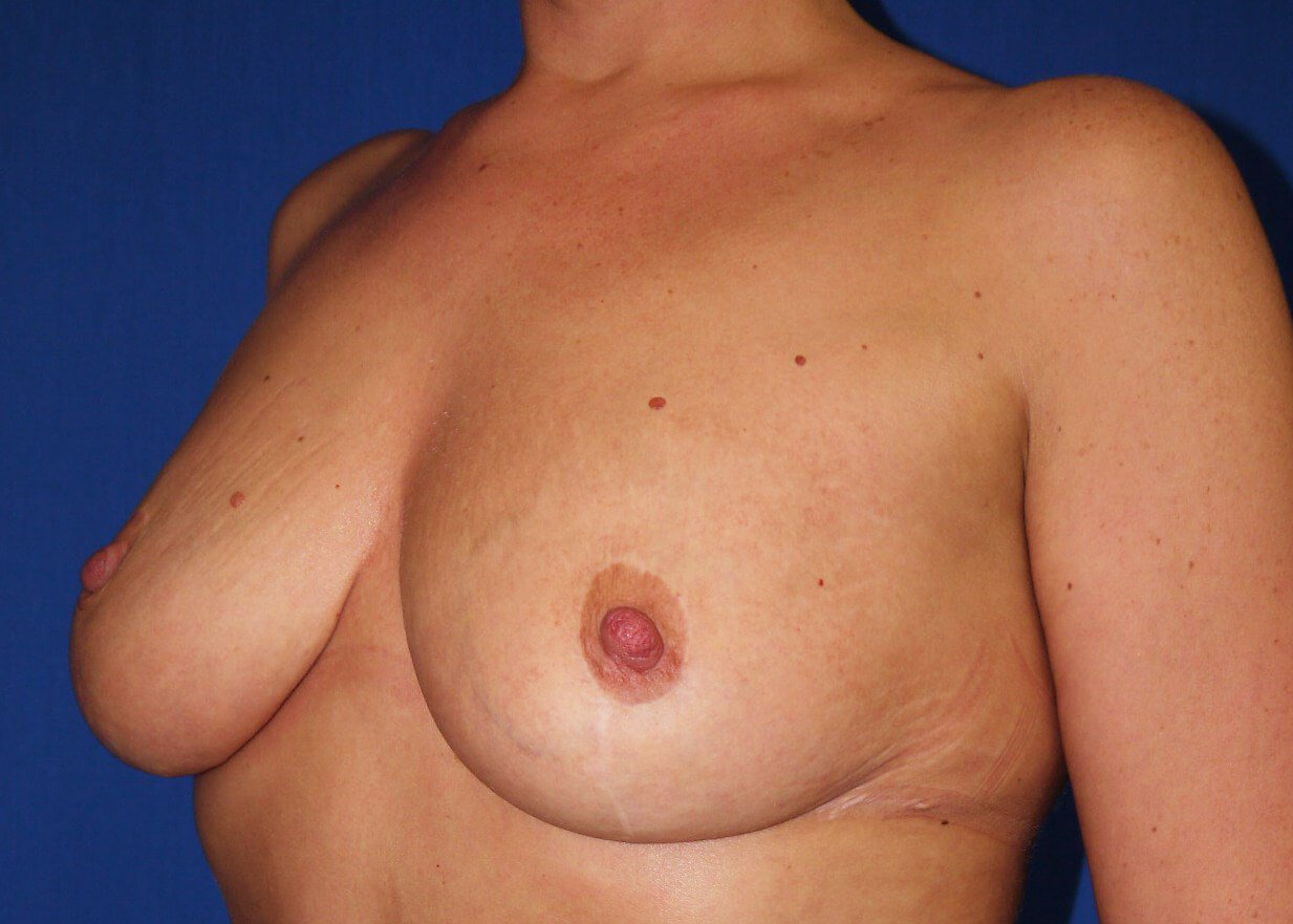 Breast Reduction After - Left Oblique View