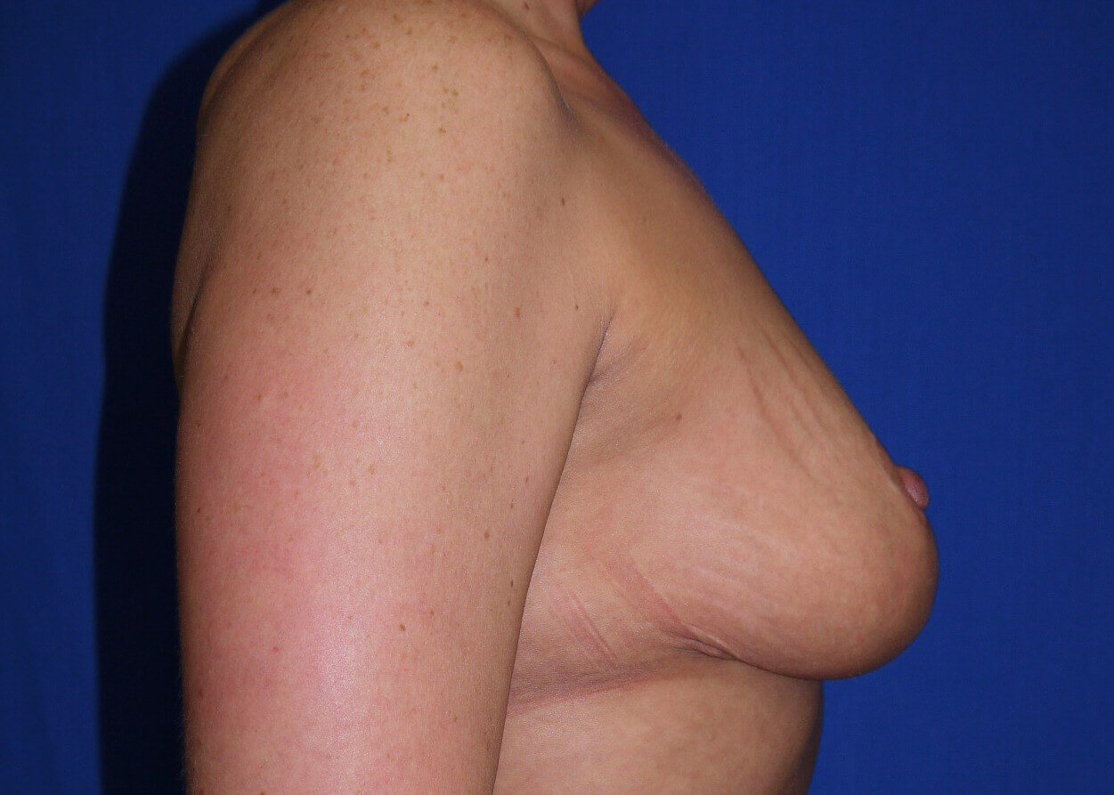 Breast Reduction After - Right View