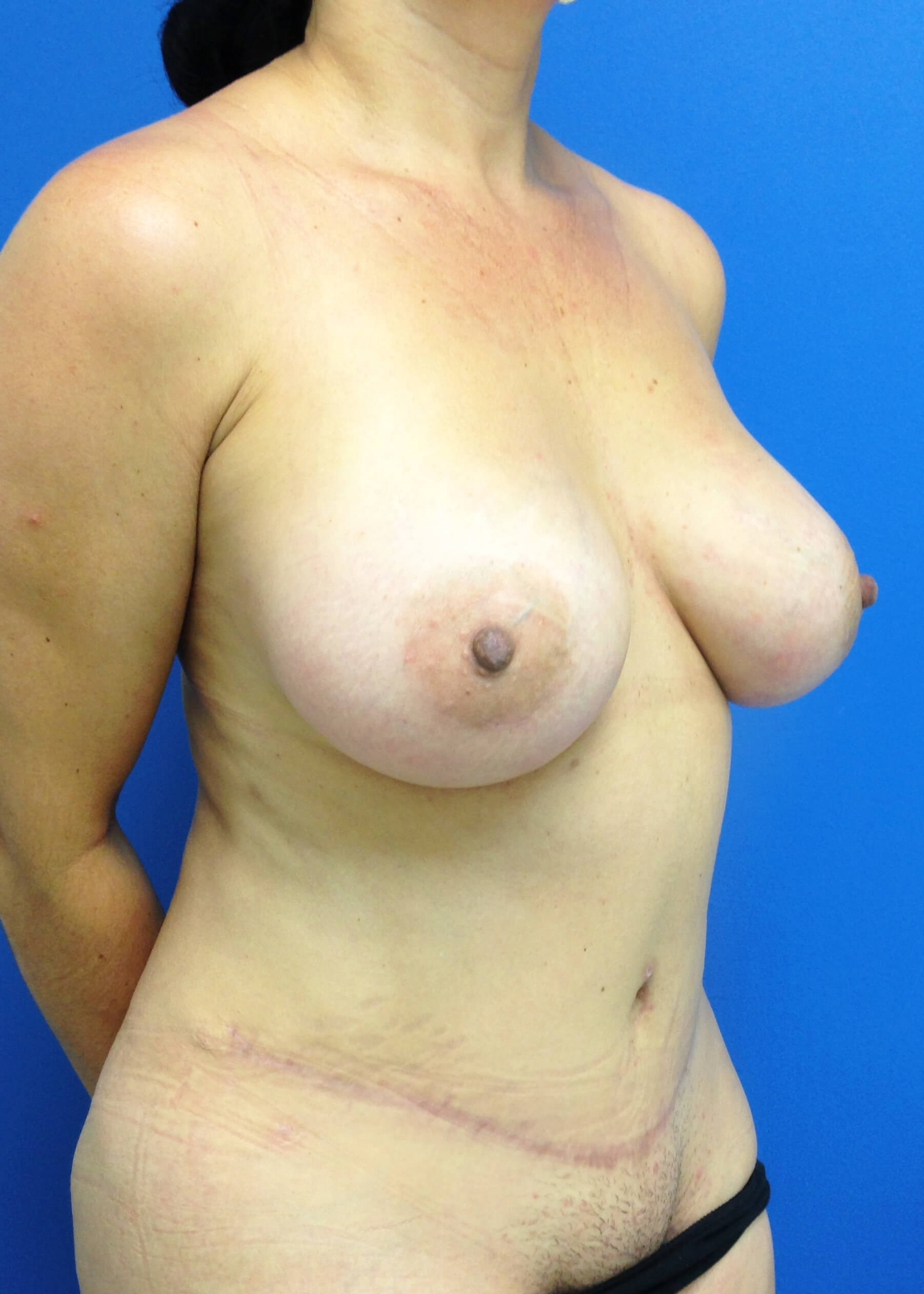 Panniculectomy after - Right View