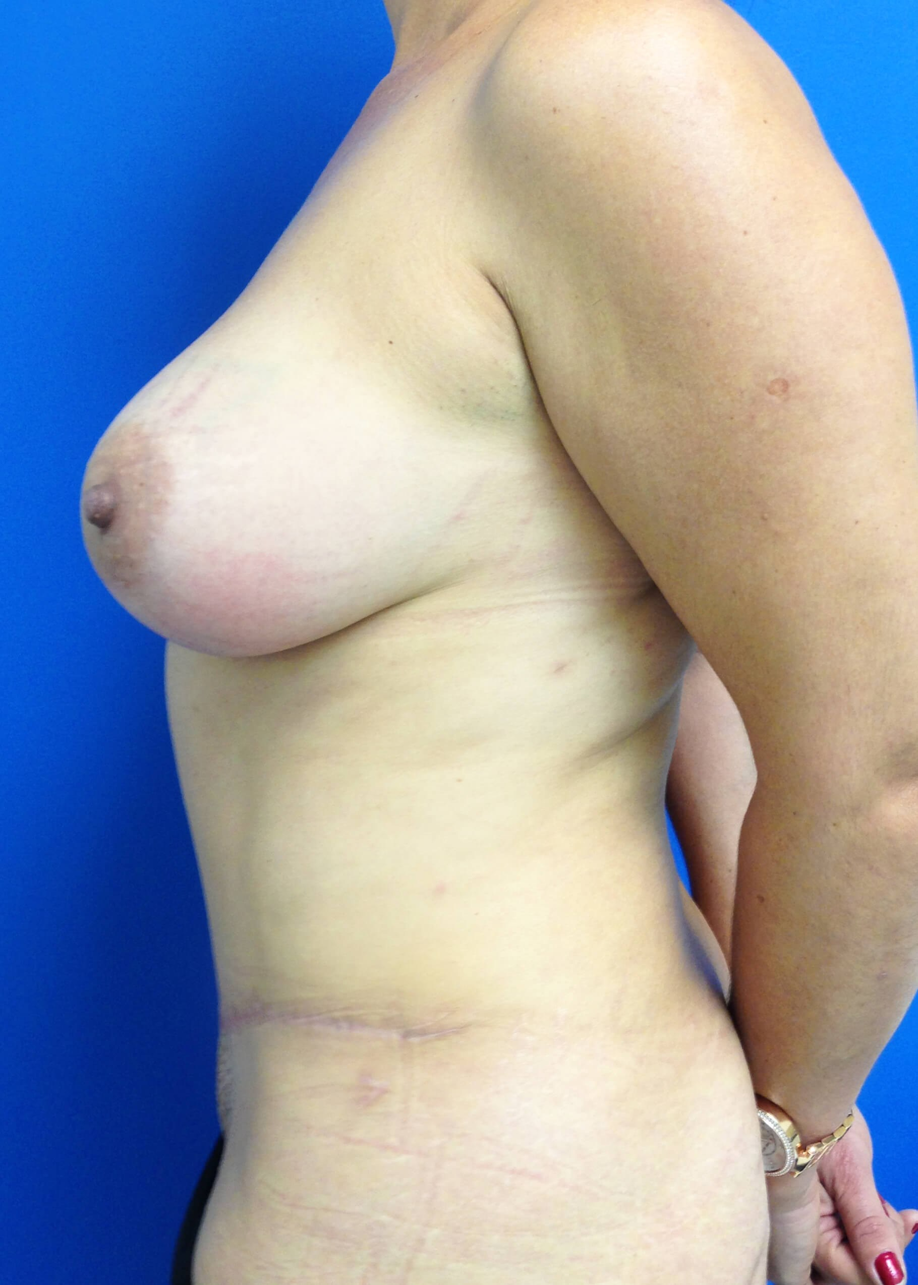 Panniculectomy after - Left View