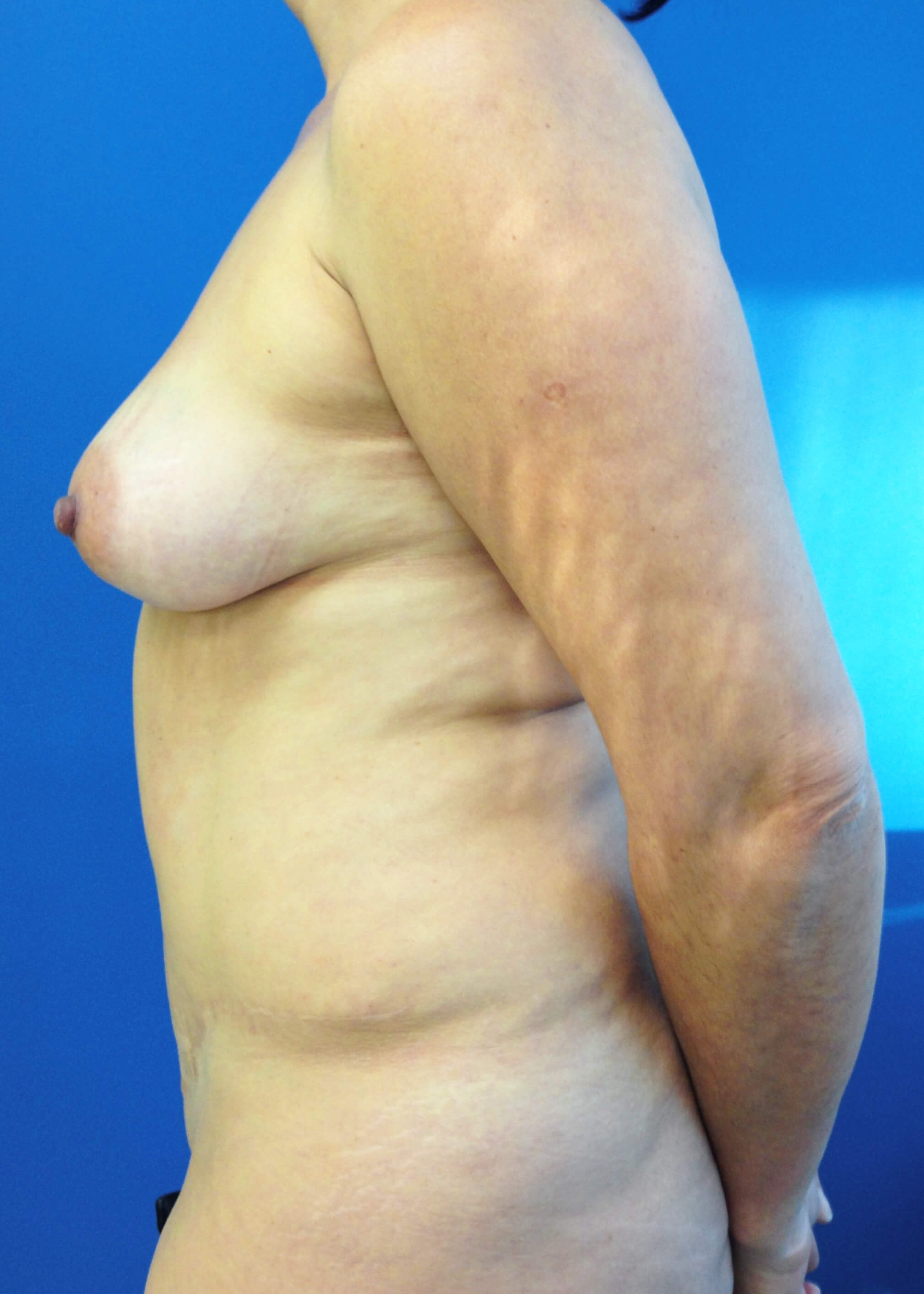 Panniculectomy Before - Left View