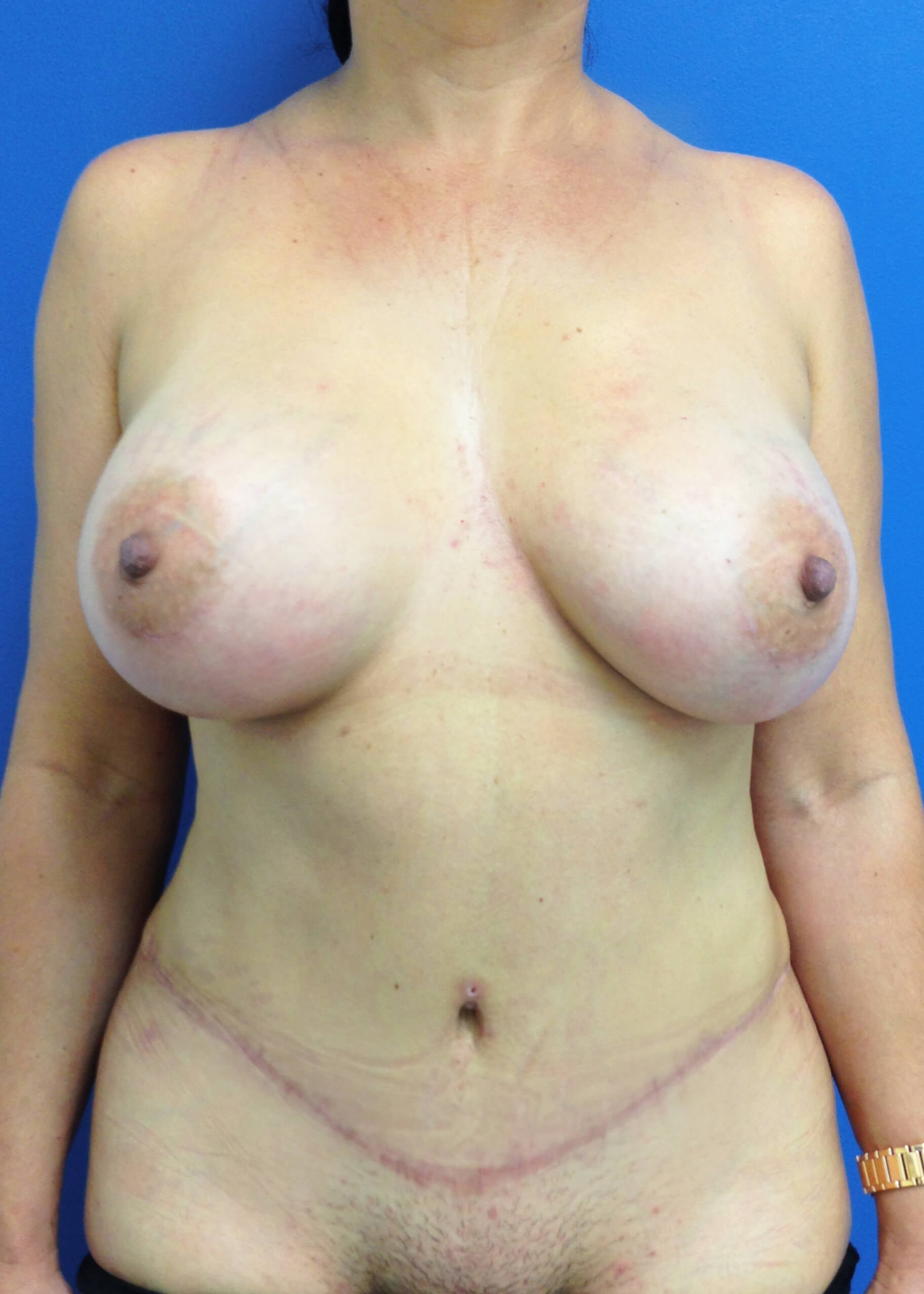 Panniculectomy after - Dr Mata