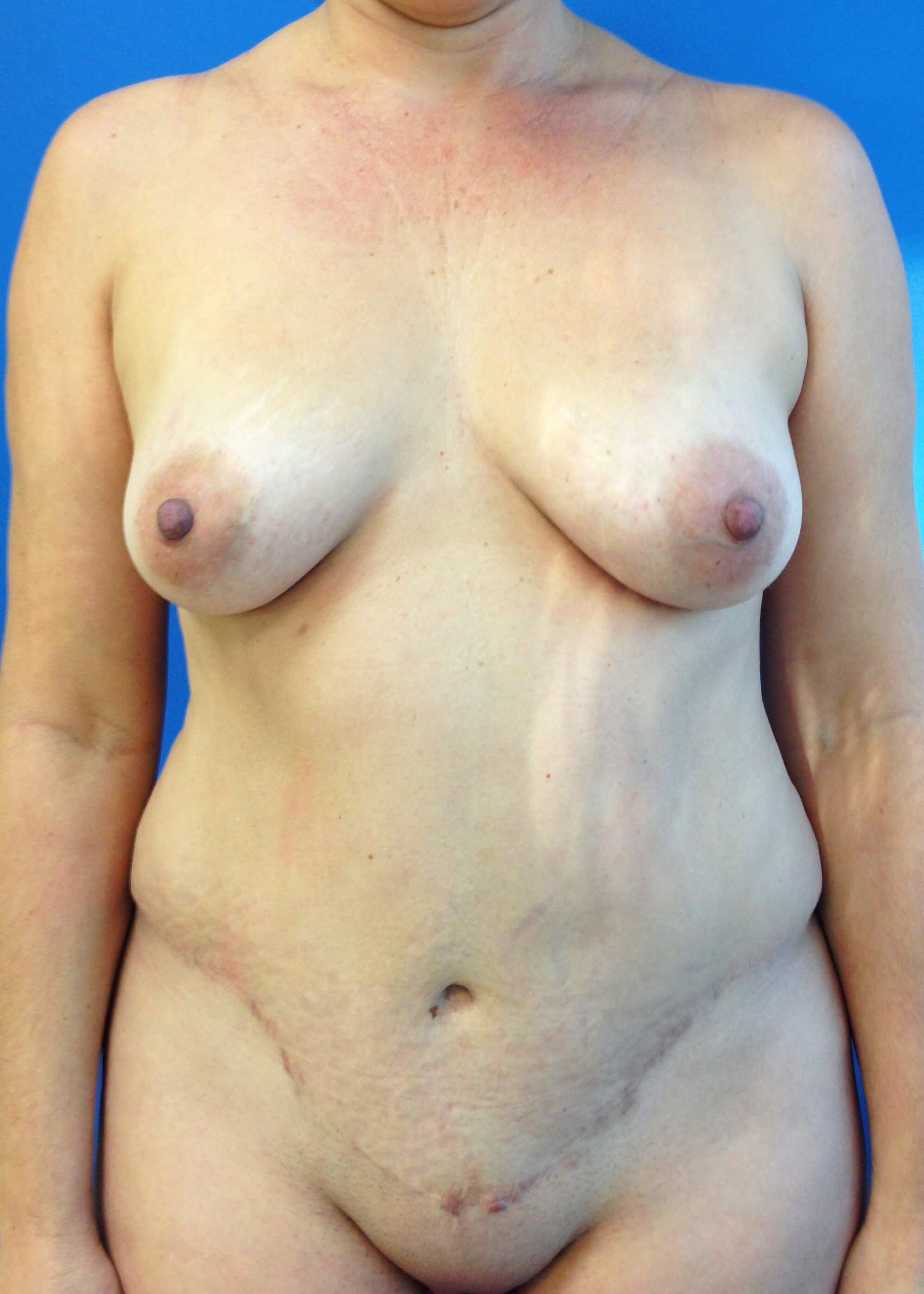 Panniculectomy Before - Dr Mata