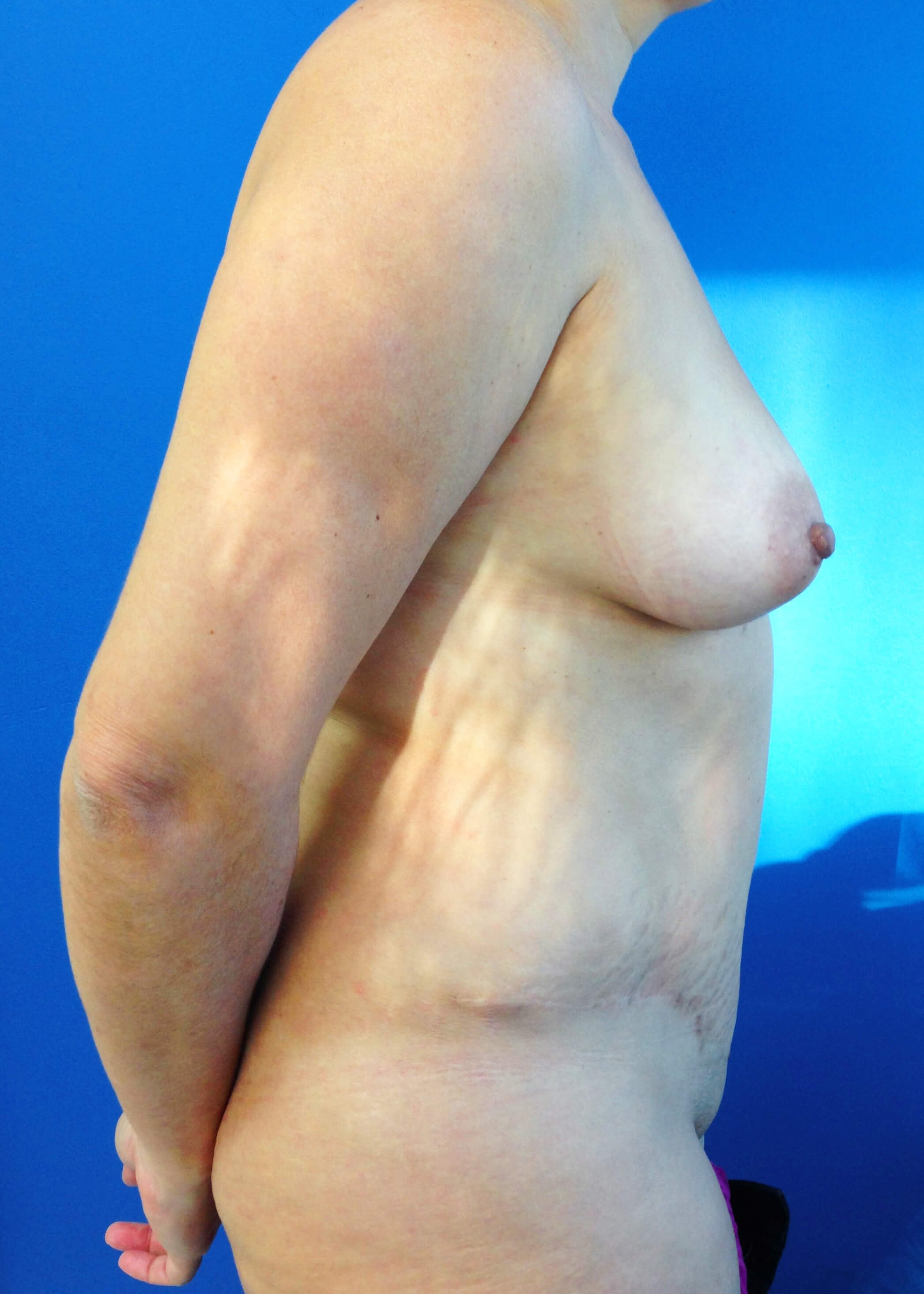 Panniculectomy Before - Right View