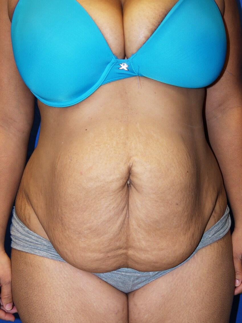 Before weight loss surgery - Dr Mata