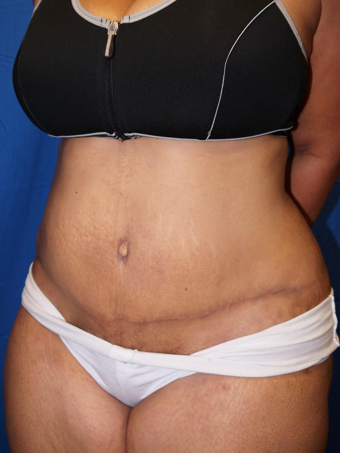 After weight loss surgery Left Oblique View - Left Oblique View