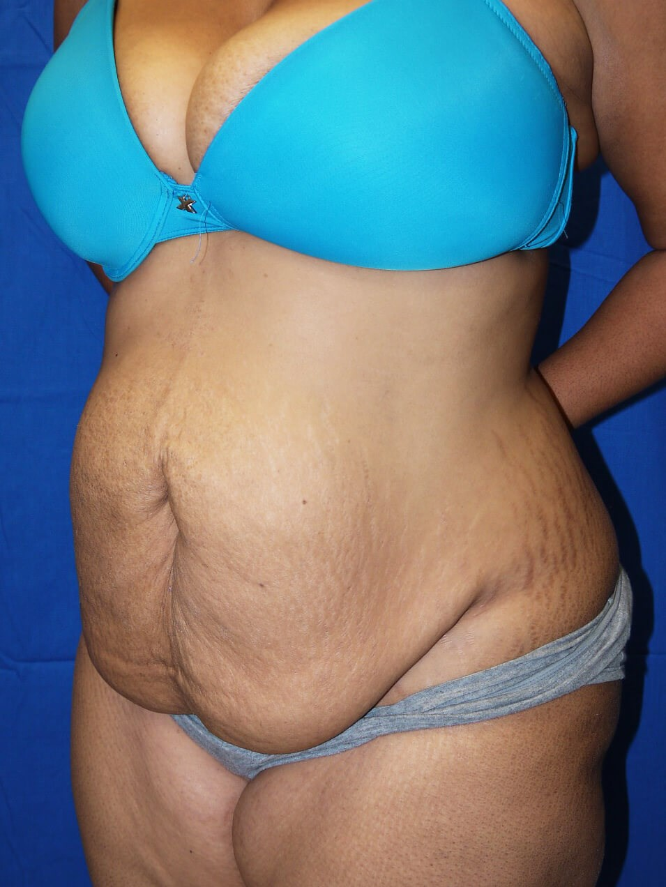 Before weight loss surgery Left Oblique View - Left Oblique View