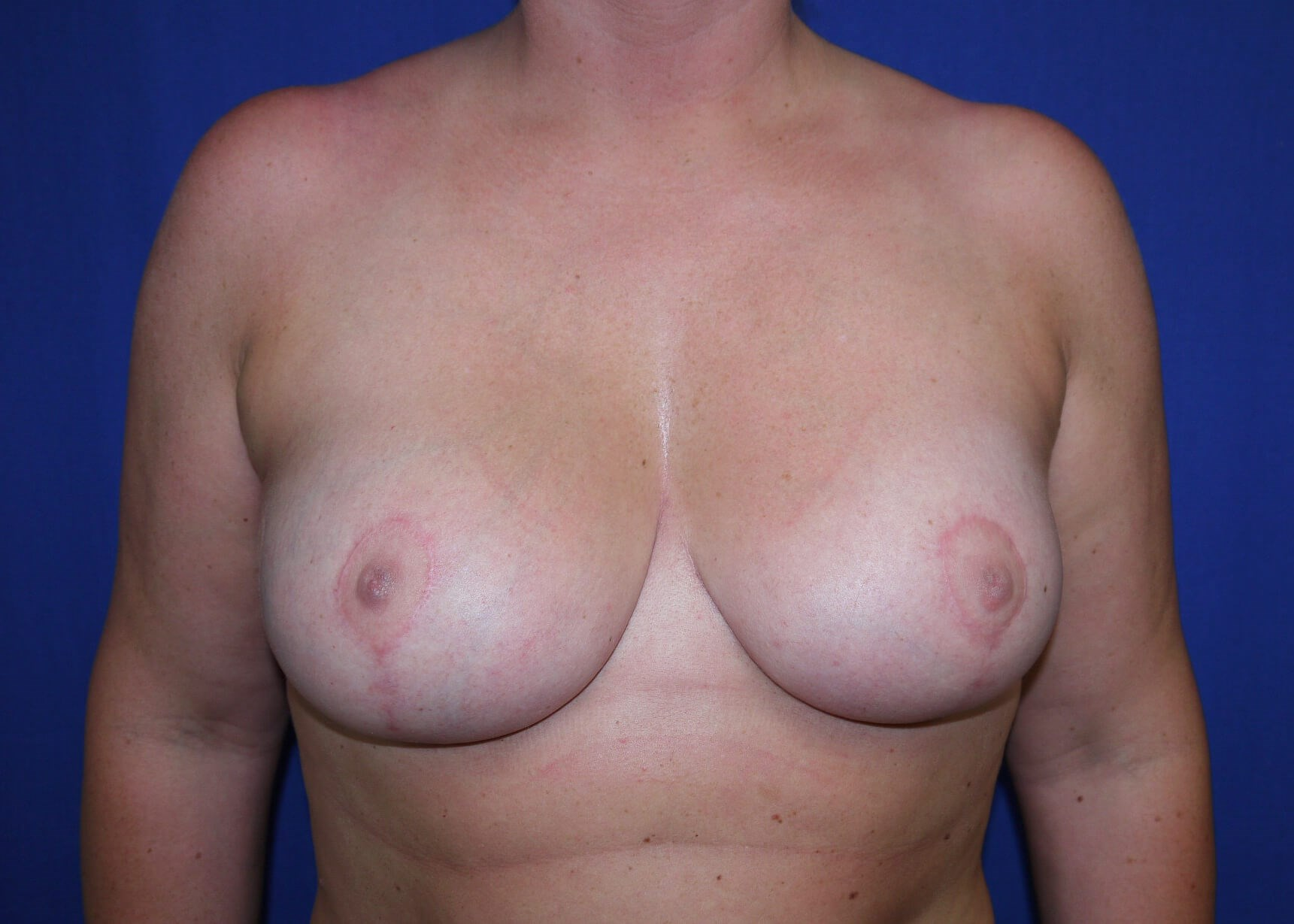 After Breast Reduction - Dr Mata