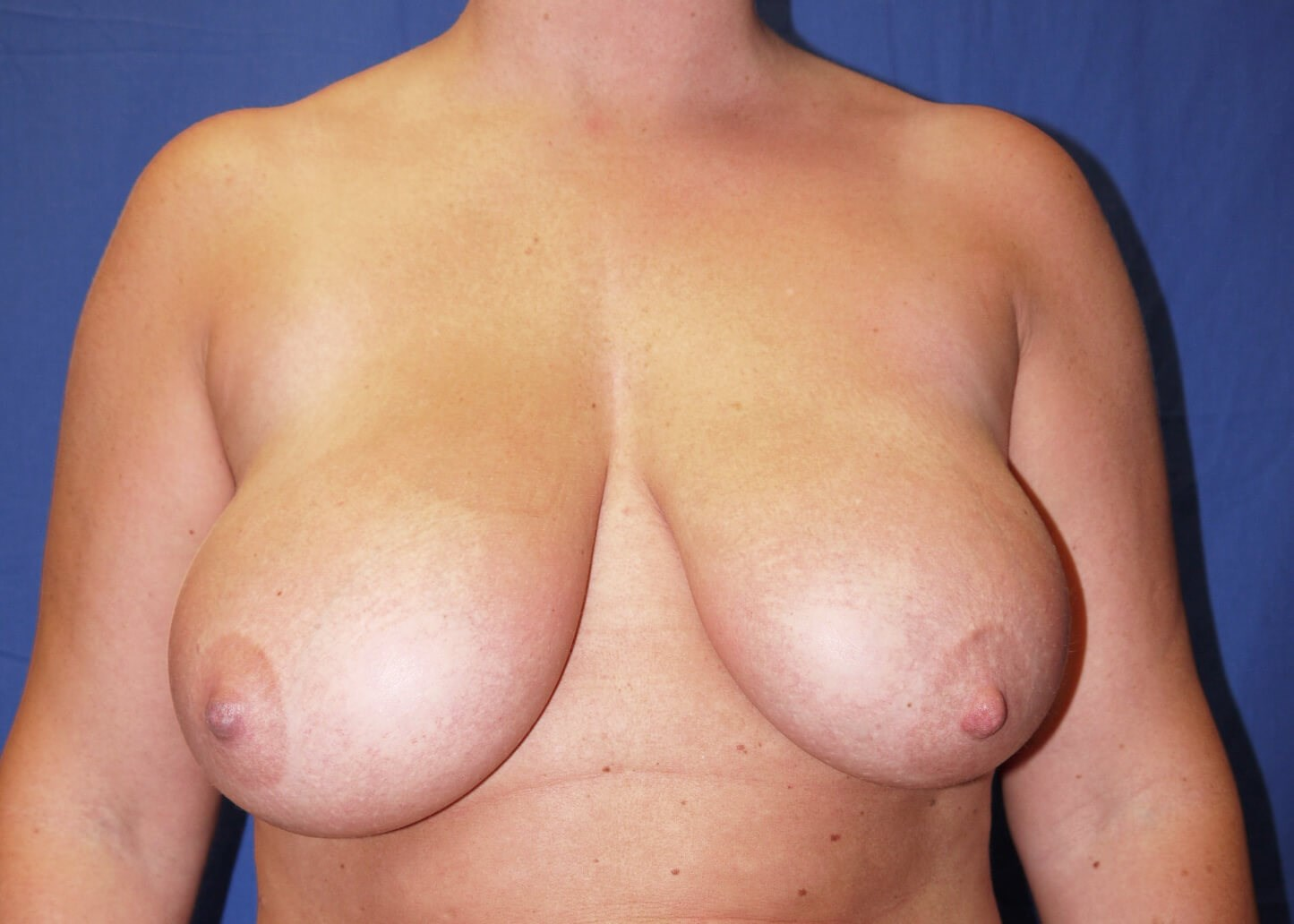 Before Breast Reduction - Dr Mata