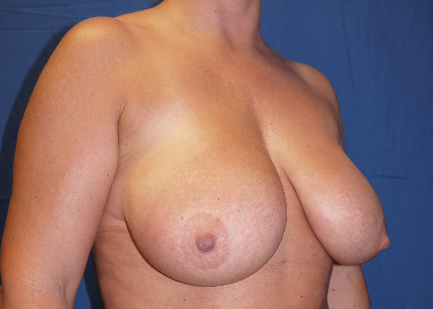 Before Breast Reduction - Right Oblique View