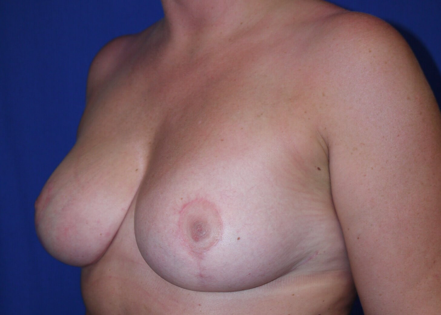After Breast Reduction - Left Oblique View