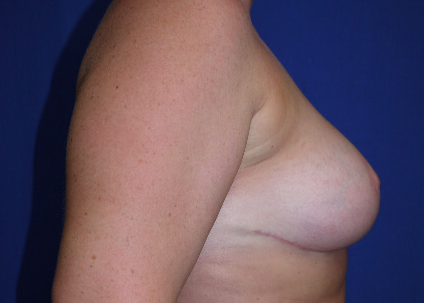 After Breast Reduction - Right View