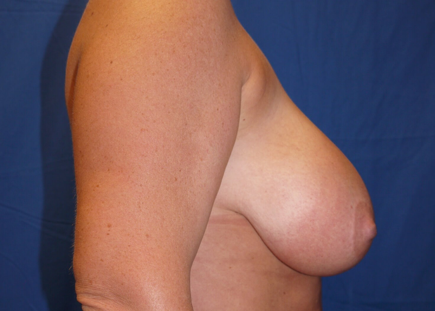 Before Breast Reduction - Right View