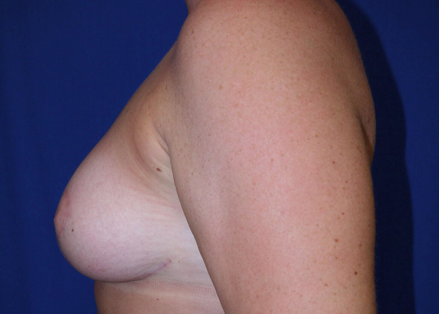 After Breast Reduction - Left View