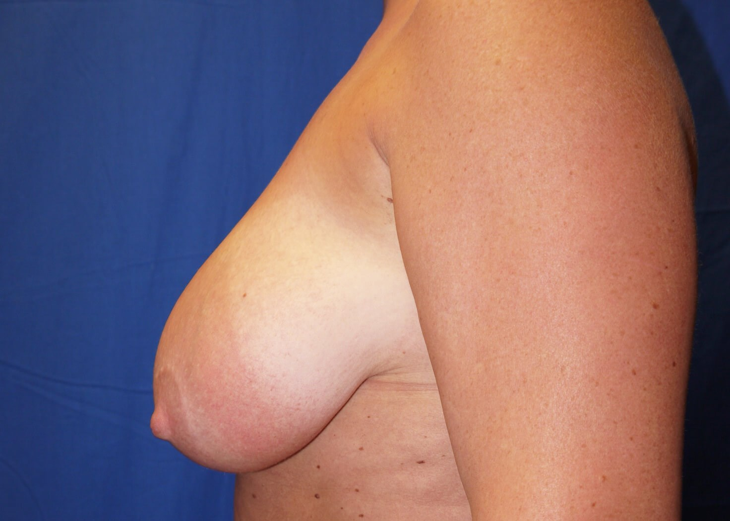 Before Breast Reduction - Left View