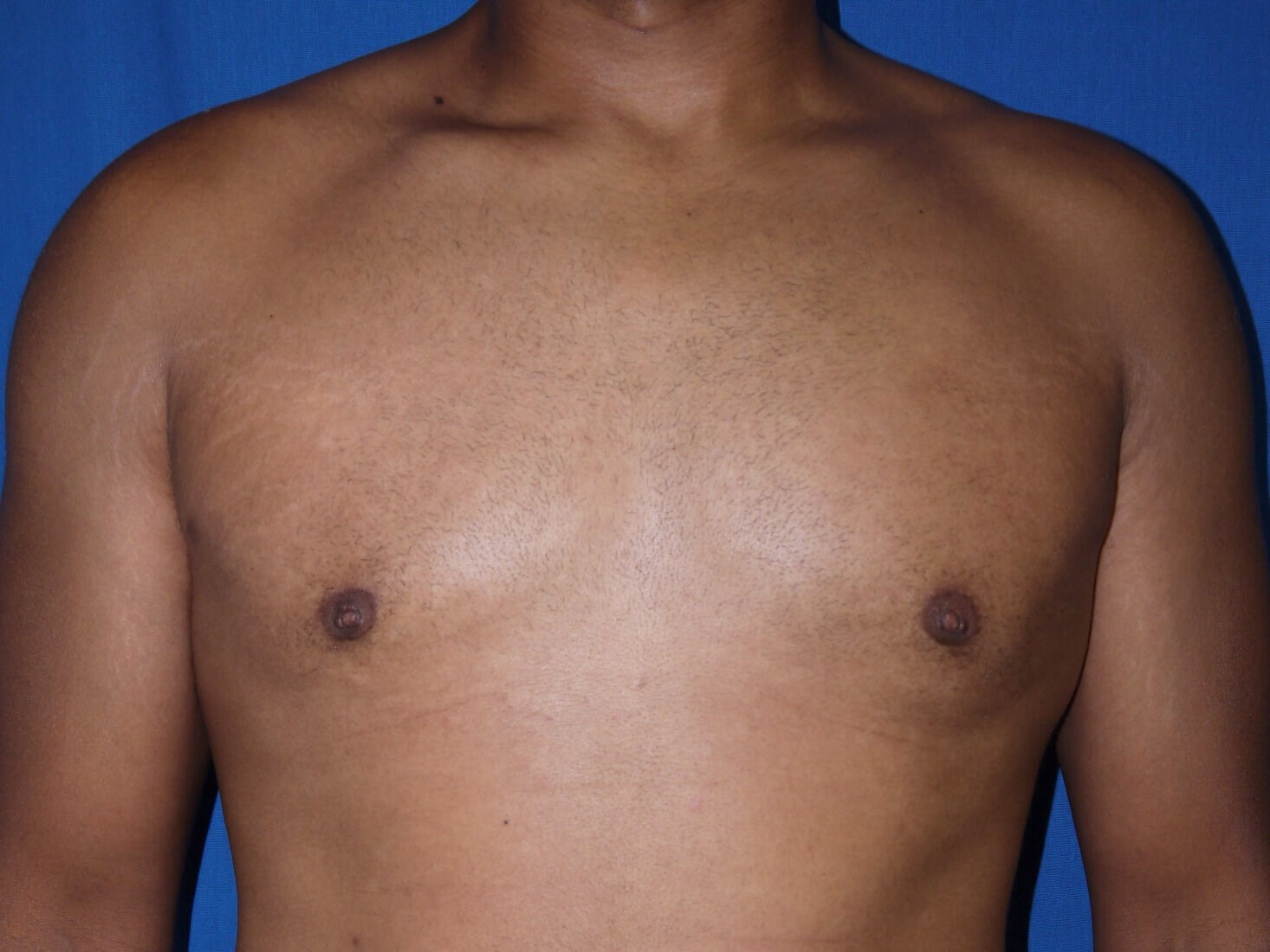 gynecomastia after - Dr Mata