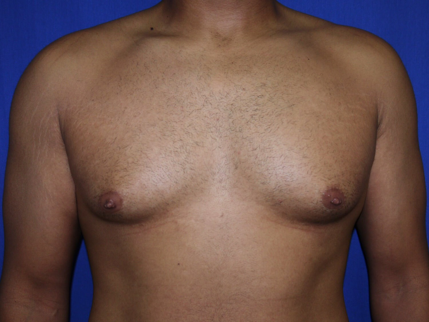 gynecomastia before - Dr Mata
