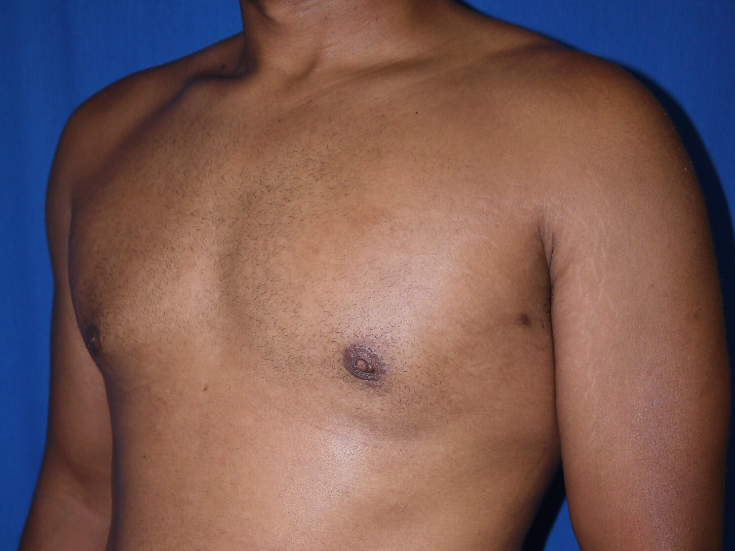 gynecomastia after - Left Oblique View