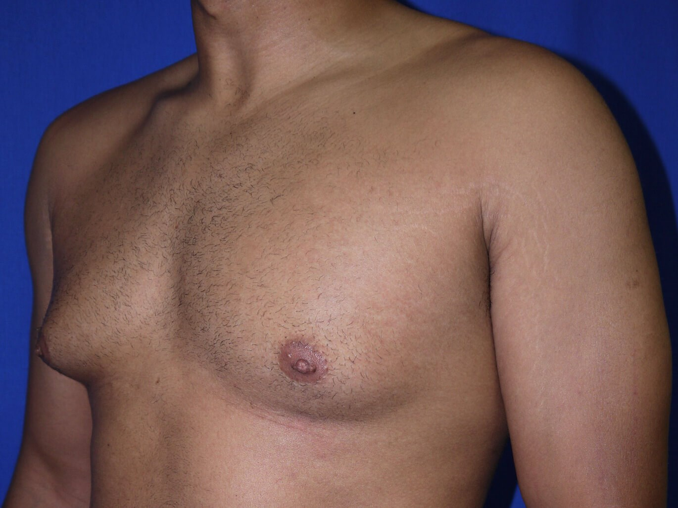 gynecomastia before - Left Oblique View