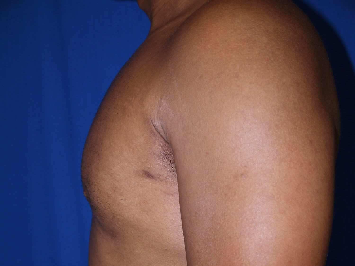 gynecomastia after - Left View