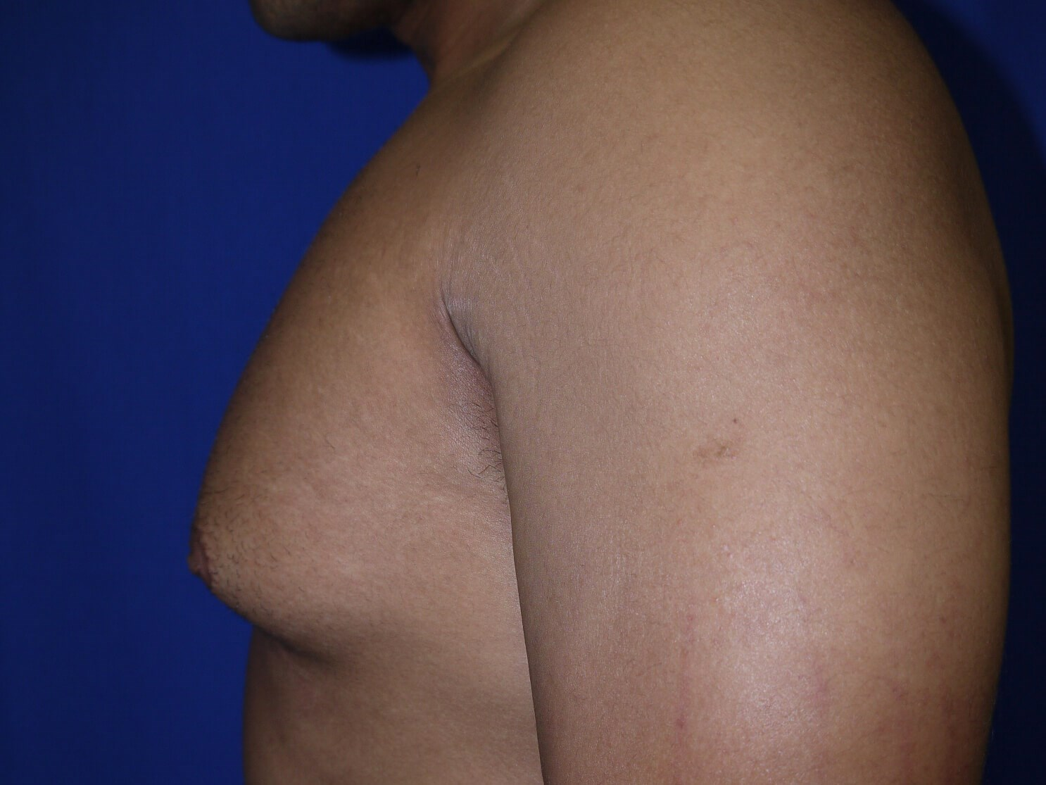 gynecomastia before - Left View