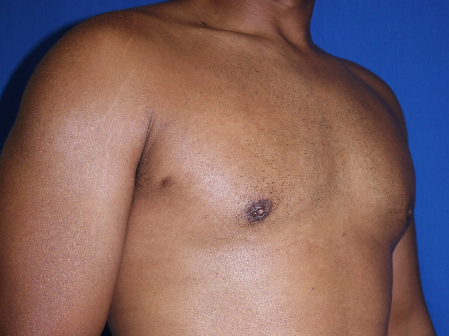 gynecomastia after - Right Oblique View