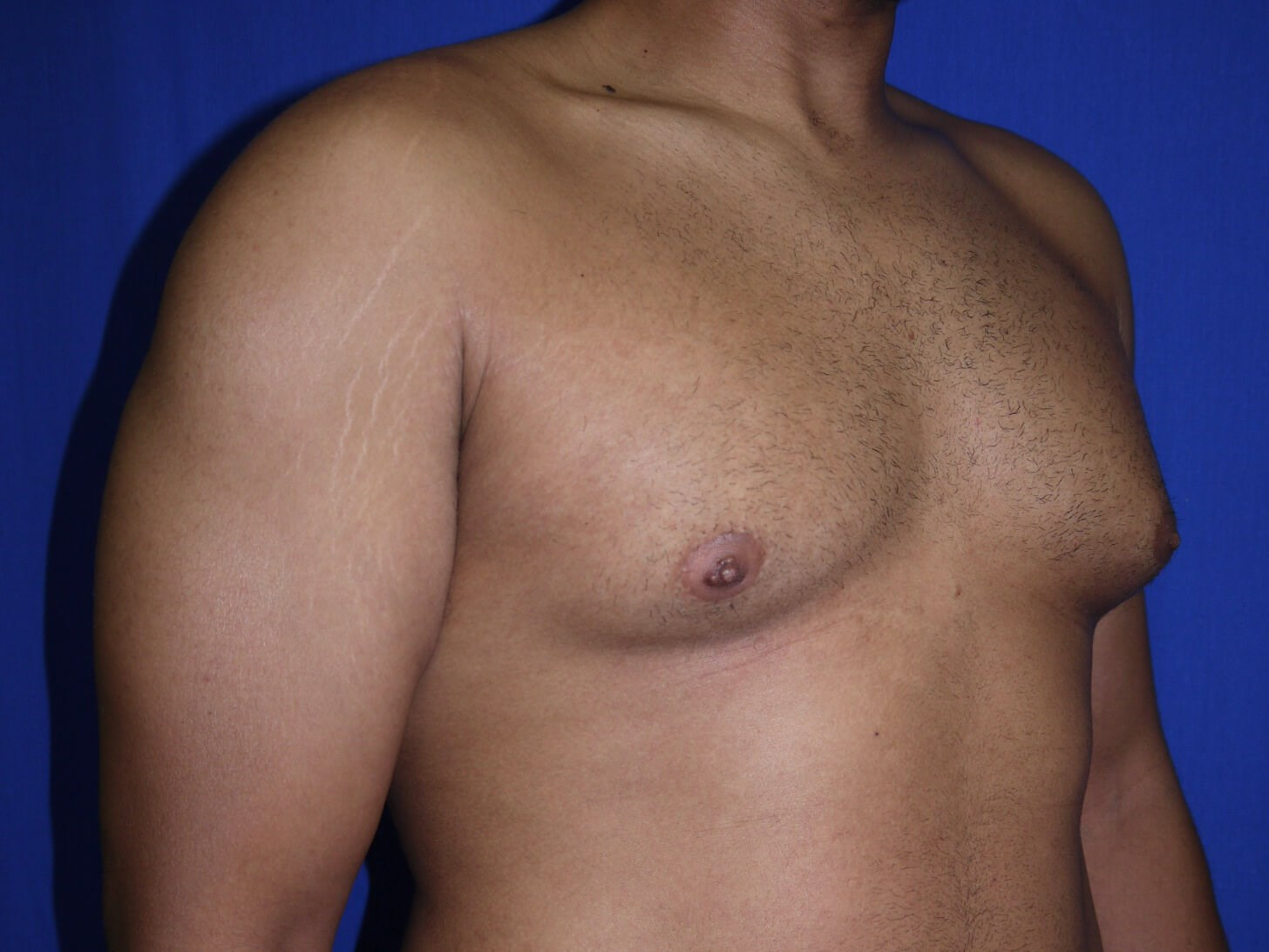 gynecomastia before - Right Oblique View