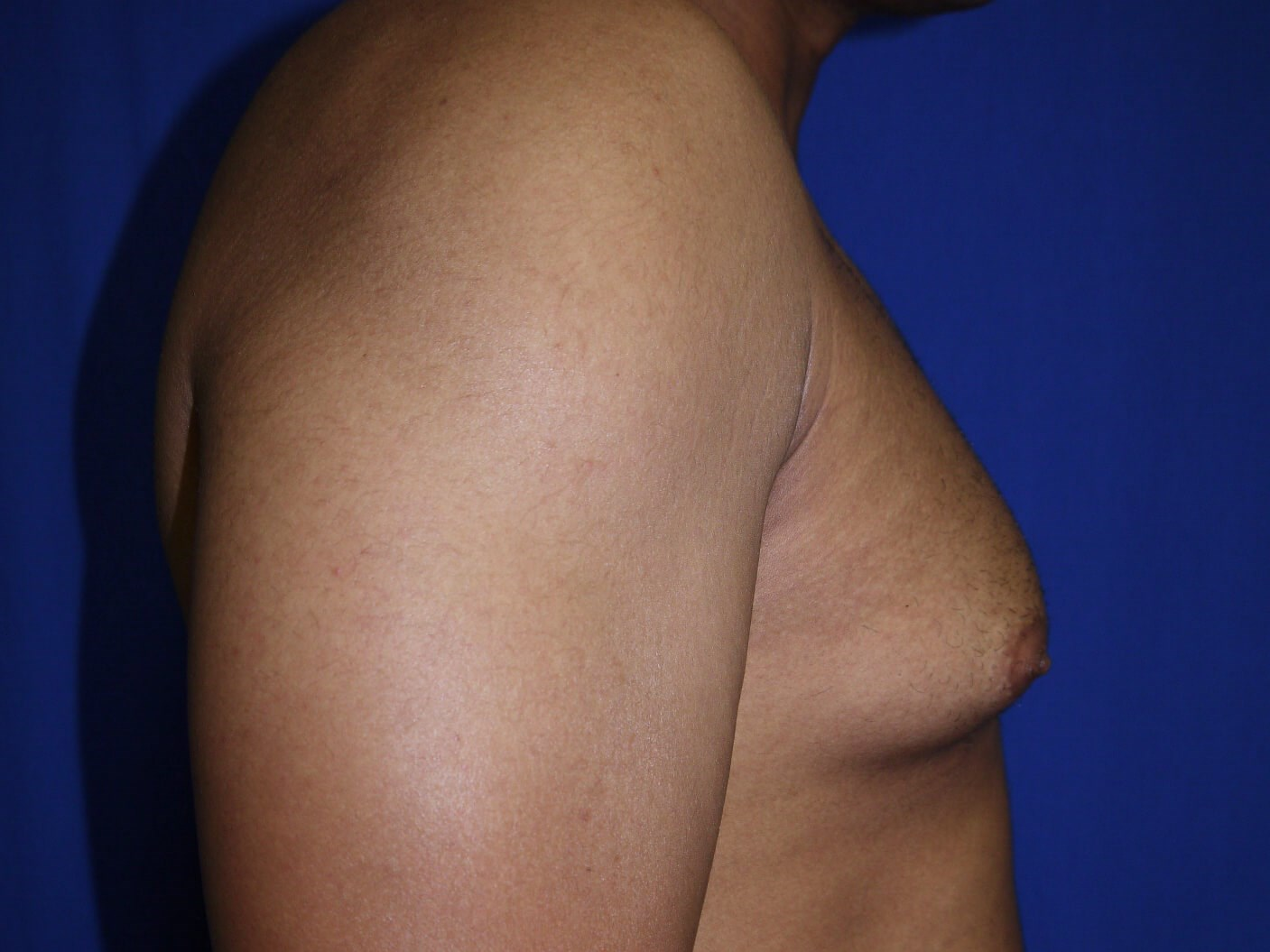 gynecomastia before - Right View