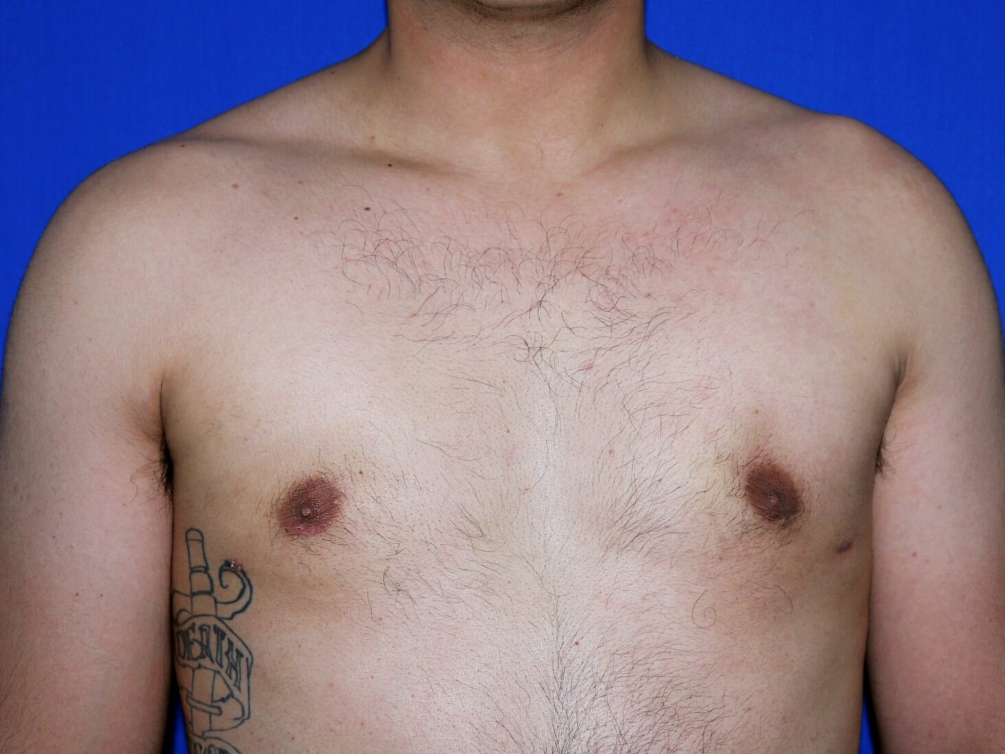 One Stitch Gynecomastia after - Dr Mata